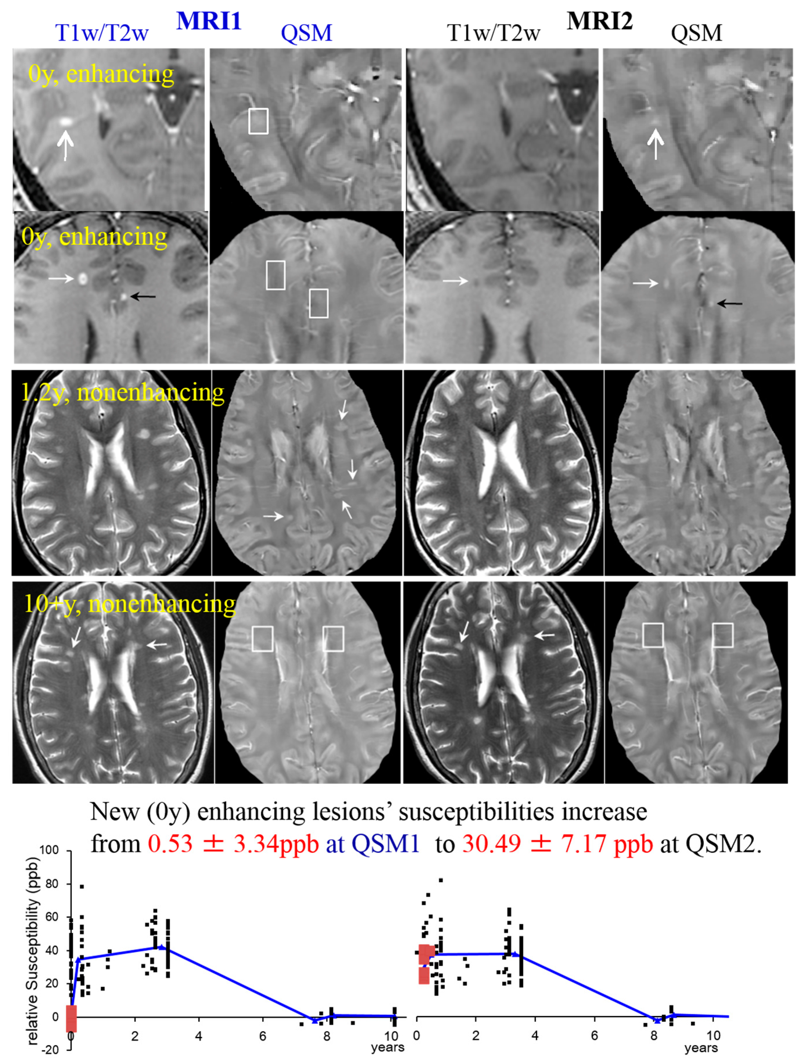IJMS | Free Full-Text | Iron in Multiple Sclerosis and Its