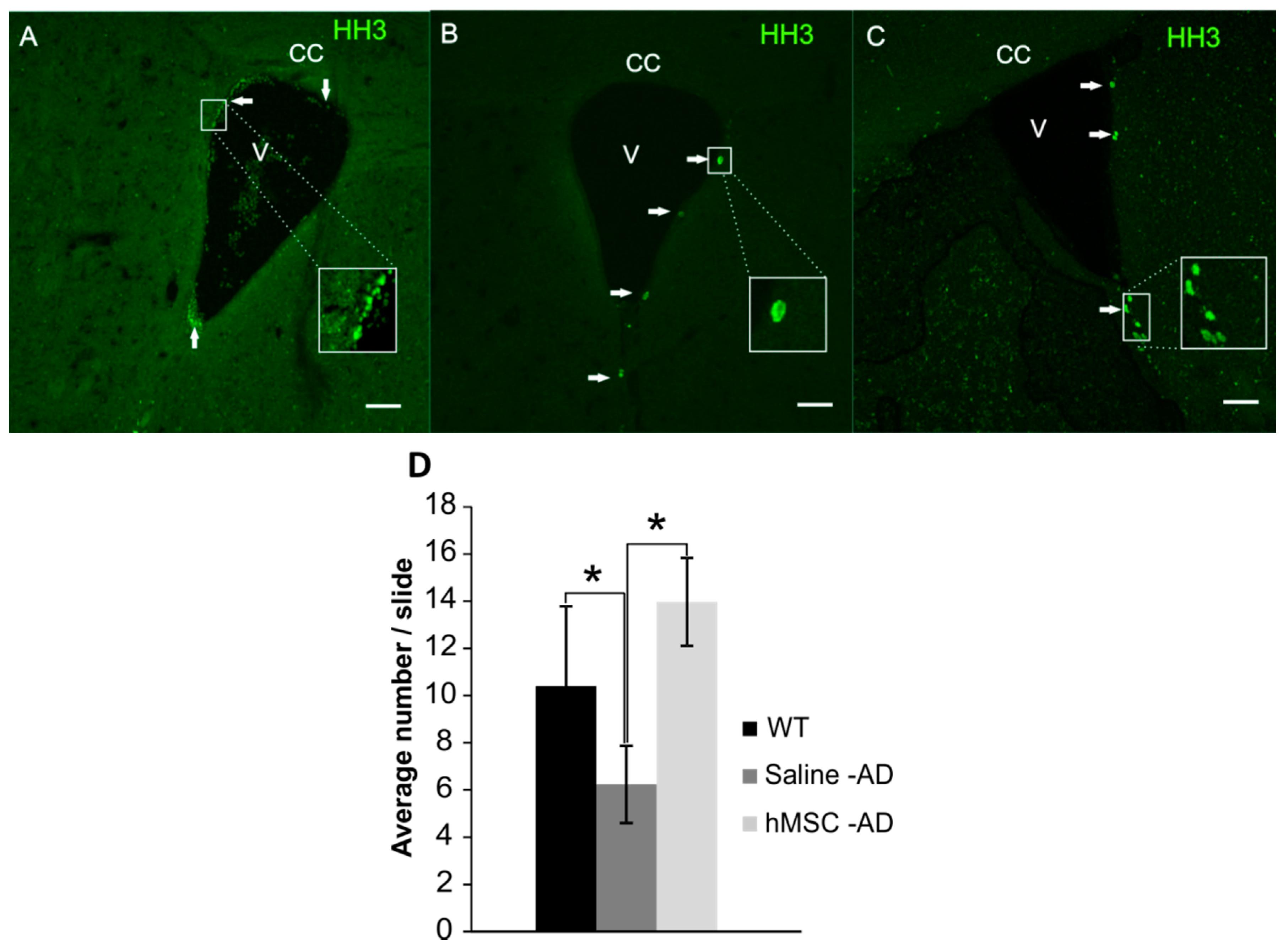 IJMS | Free Full-Text | Mesenchymal Stem Cells Preserve Working