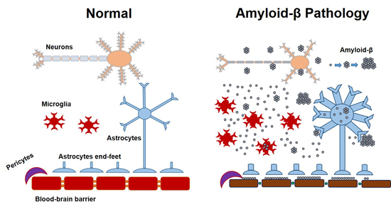 Ijms Free Full Text Amyloid And Astrocytes Interplay