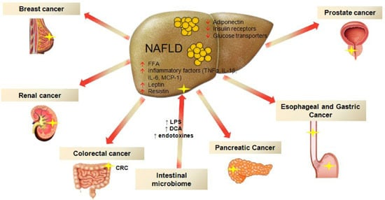 Ijms Free Full Text Non Alcoholic Fatty Liver Disease And Extra Hepatic Cancers Html