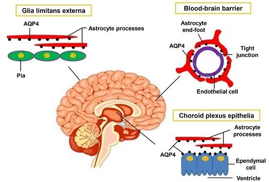 cerebral edema papers research