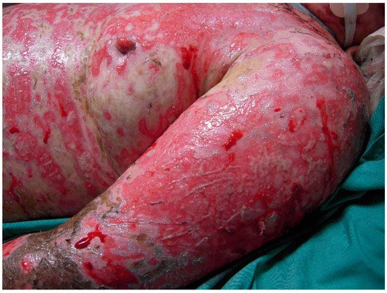 toxic epidermal necrolysis Toxic epidermal necrolysis is a life-threatening skin disorder characterized by a blistering and peeling of the skin this disorder can be caused by a drug reaction—often antibiotics or anticonvulsives.