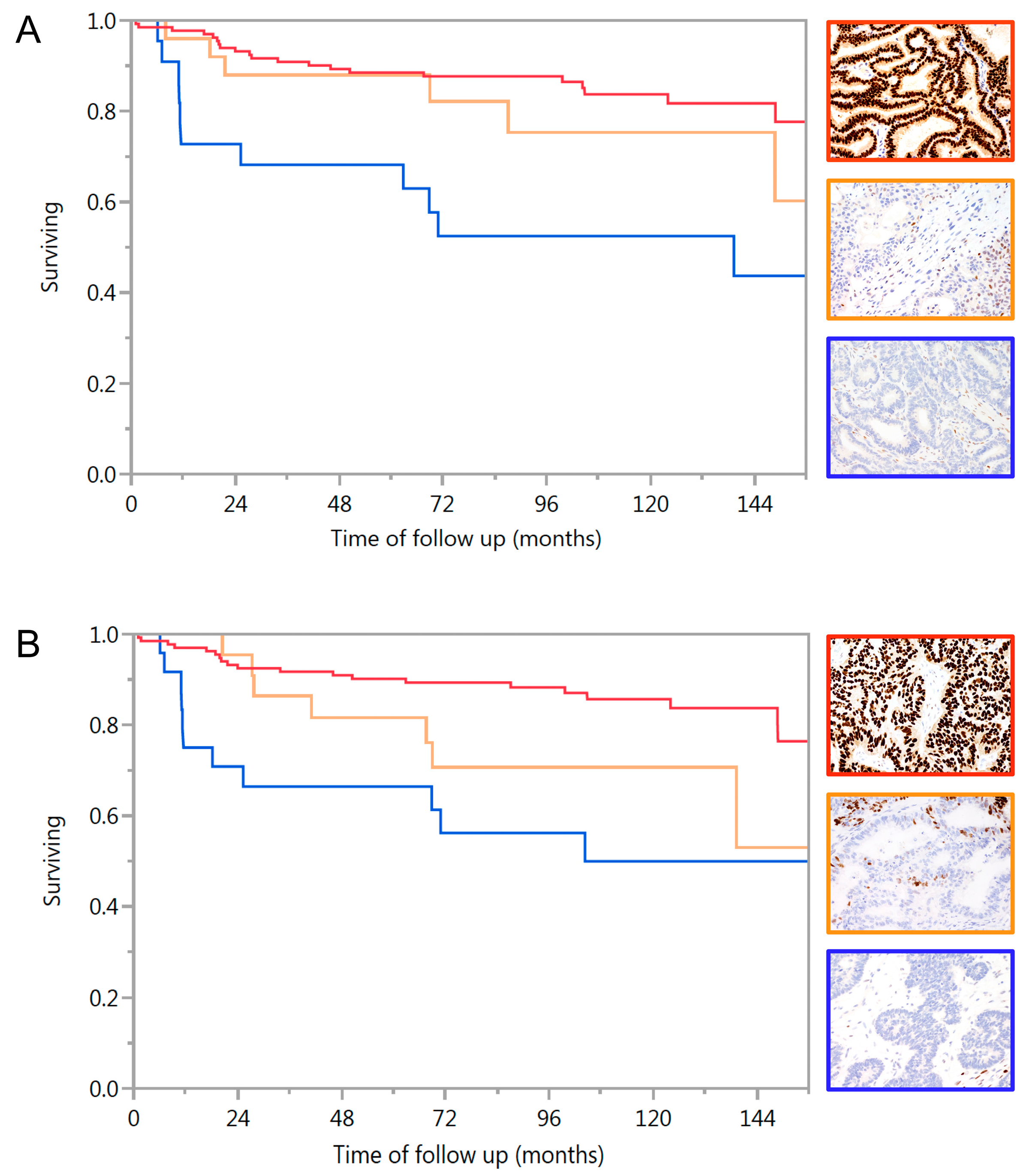 Ijms Free Full Text Association Of Hormone Receptor Expression With Survival In Ovarian Endometrioid Carcinoma Biological Validation And Clinical Implications Html