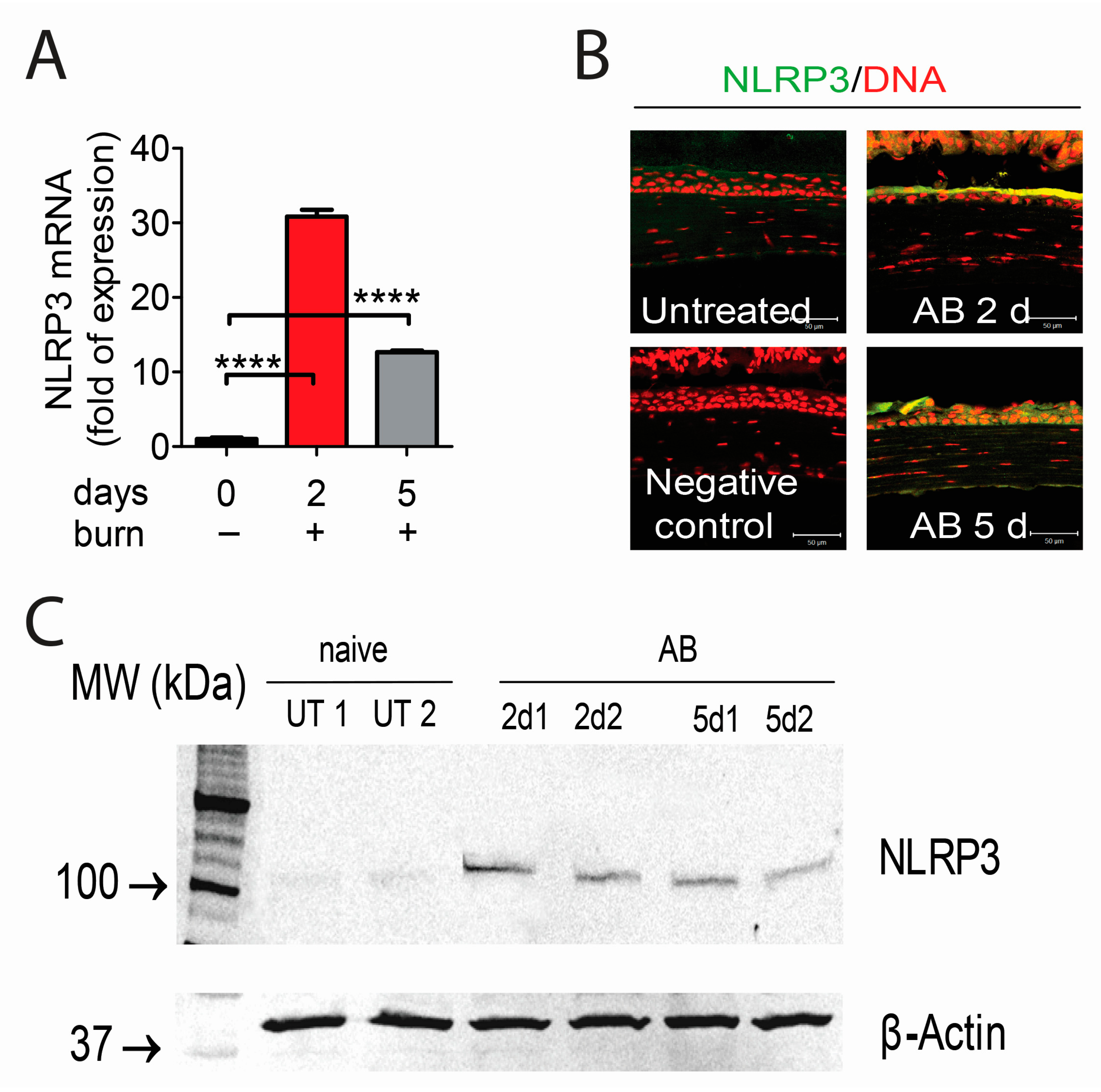 Ijms free full text inhibition of nlrp3 inflammasome pathway by no ccuart Image collections
