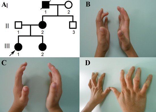 Exome Sequencing Identified a Novel FBN2 Mutation in a Chinese Family with Congenital Contractural Arachnodactyly