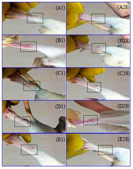 A Novel Brucine Gel Transdermal Delivery System Designed for Anti-Inflammatory and Analgesic Activities