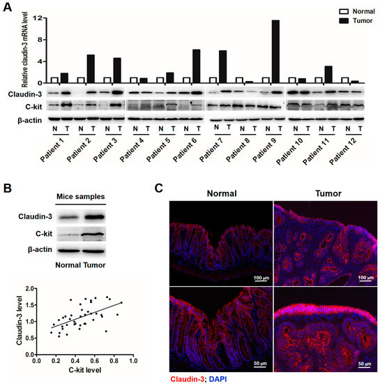 SCF-C-Kit-JNK-AP-1 Signaling Pathway Promotes Claudin-3 Expression in Colonic Epithelium and Colorectal Carcinoma