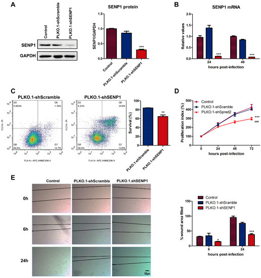 SUMO-Specific Cysteine Protease 1 Promotes Epithelial Mesenchymal Transition of Prostate Cancer Cells via Regulating SMAD4 deSUMOylation