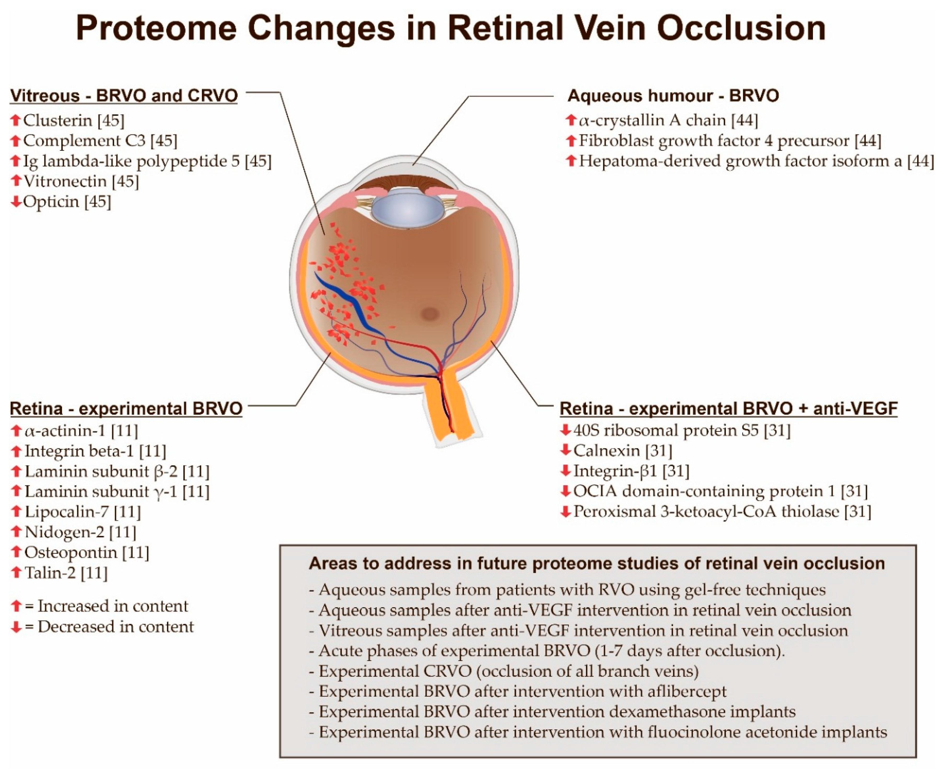 Retinal Vein Occlusion - EyeWiki
