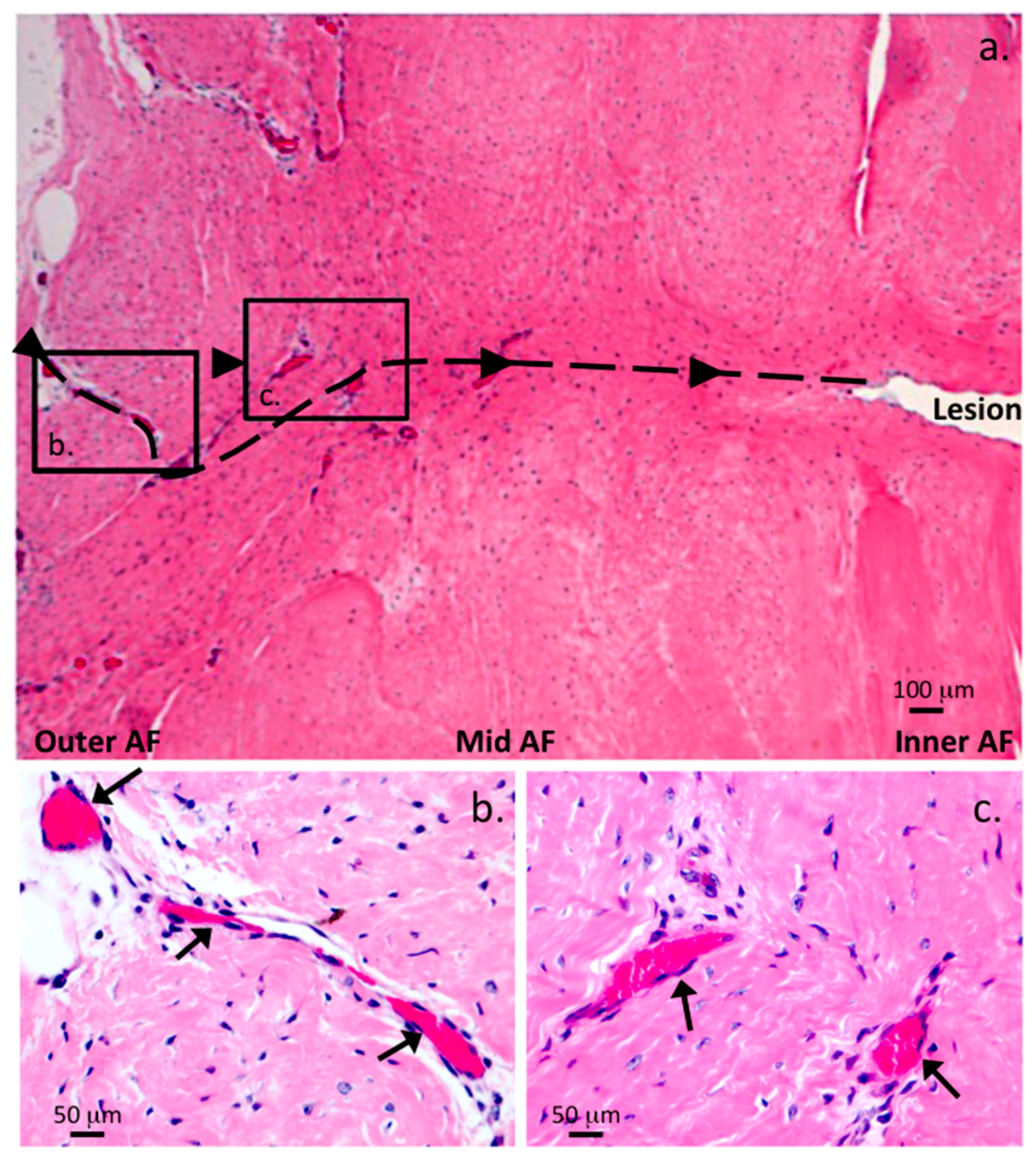 Ijms Free Full Text A Histopathological Scheme For The