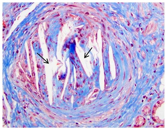 IJMS | Free Full-Text | Cholesterol Crystal Embolism and