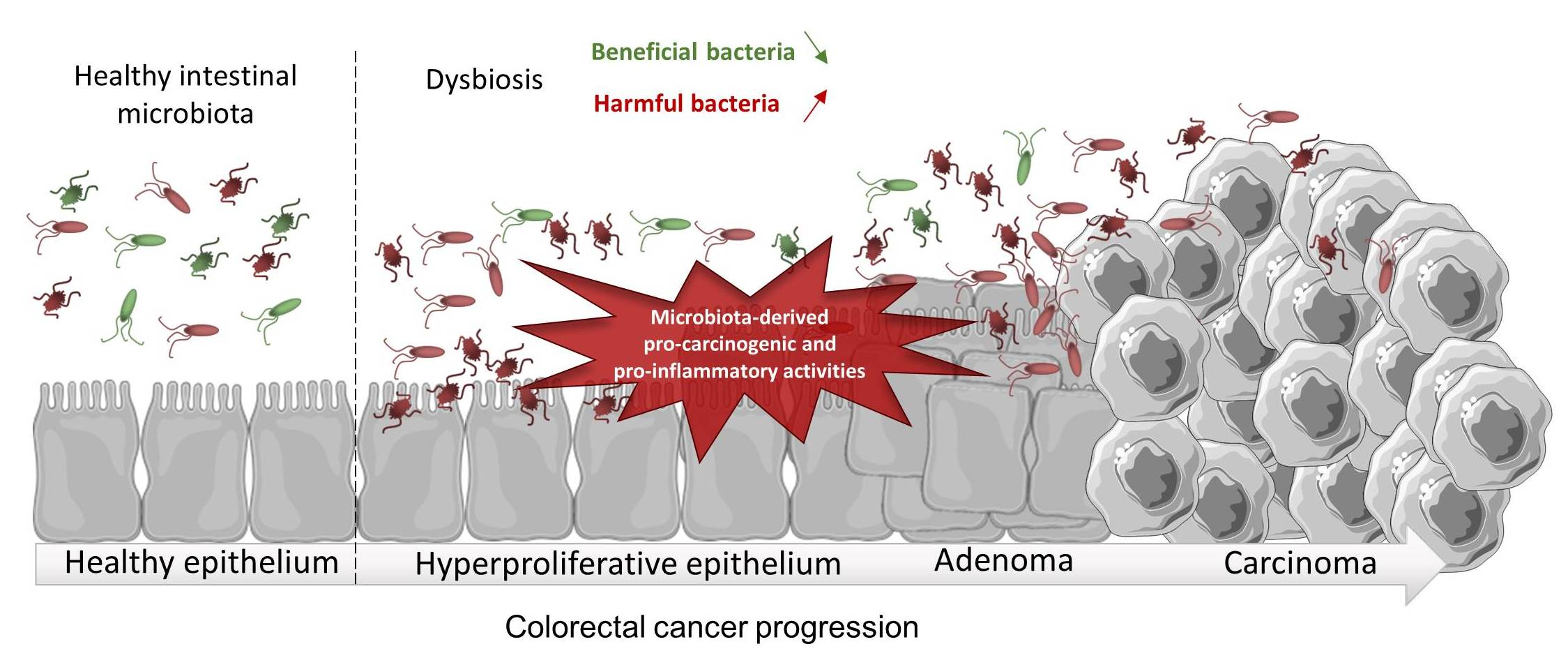 Ijms Free Full Text Microbiota Inflammation And Colorectal Cancer Html