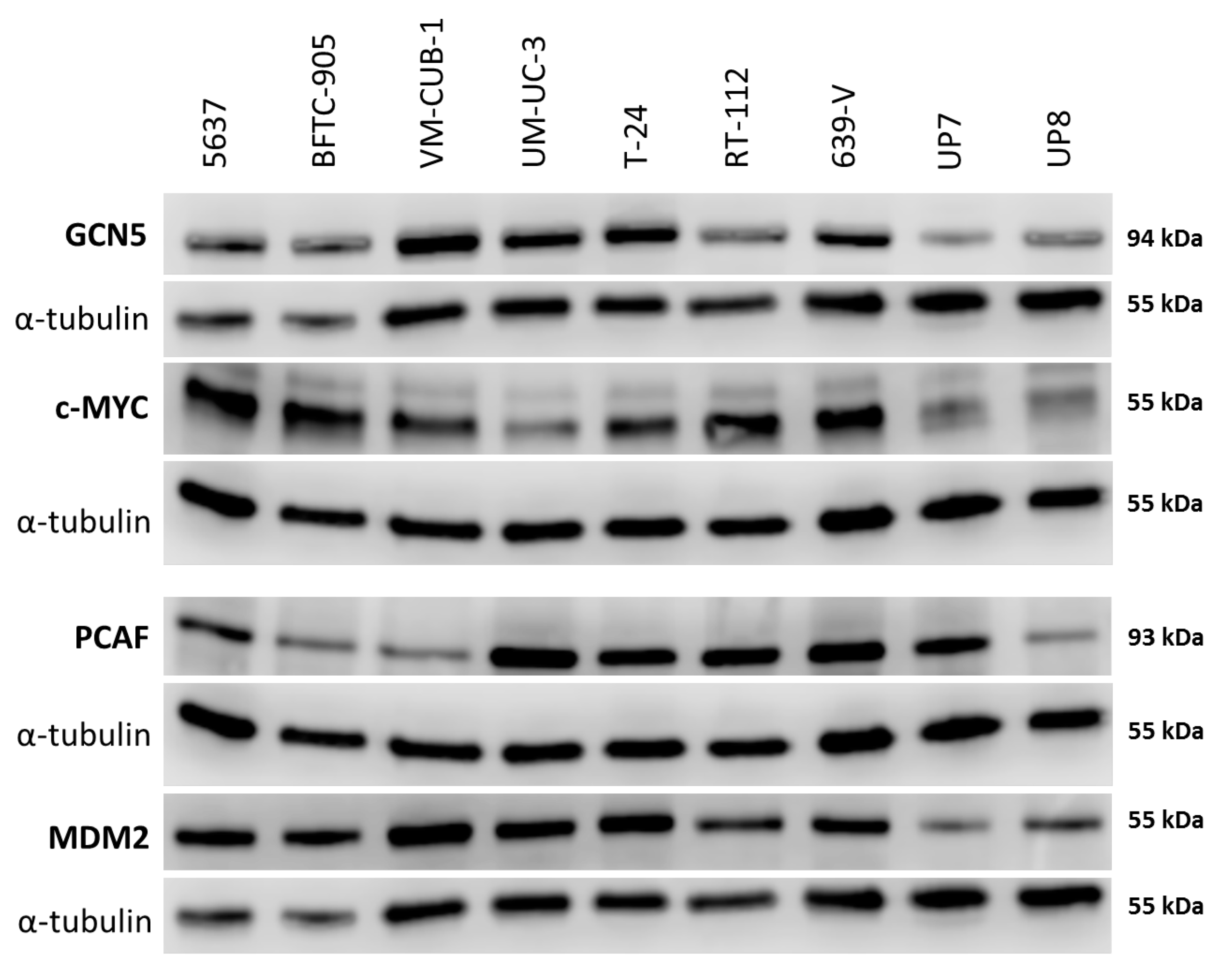 The Effect of Acetyltransferases Paper