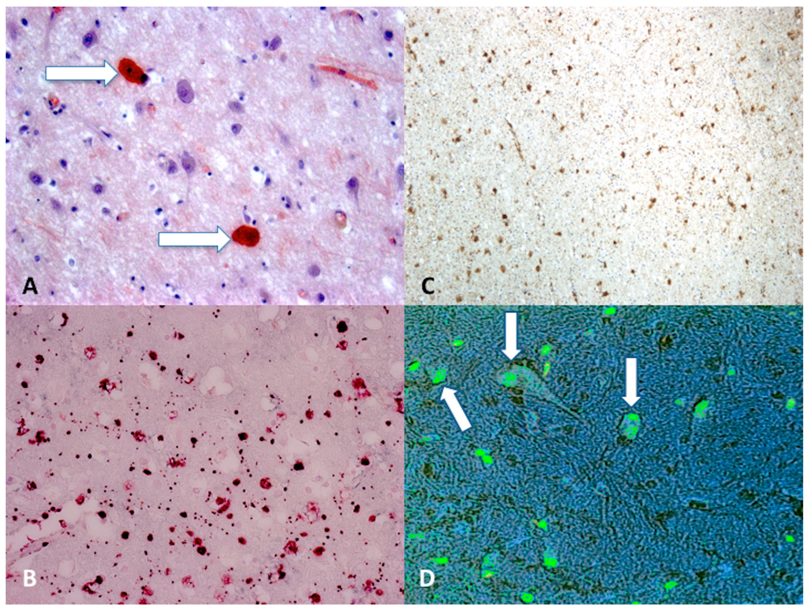 IJMS   Free Full-Text   Diffuse Axonal Injury and ...
