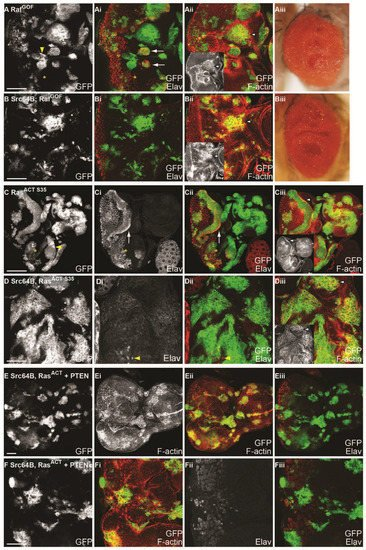 IJMS | Special Issue : Drosophila Model and Human Disease