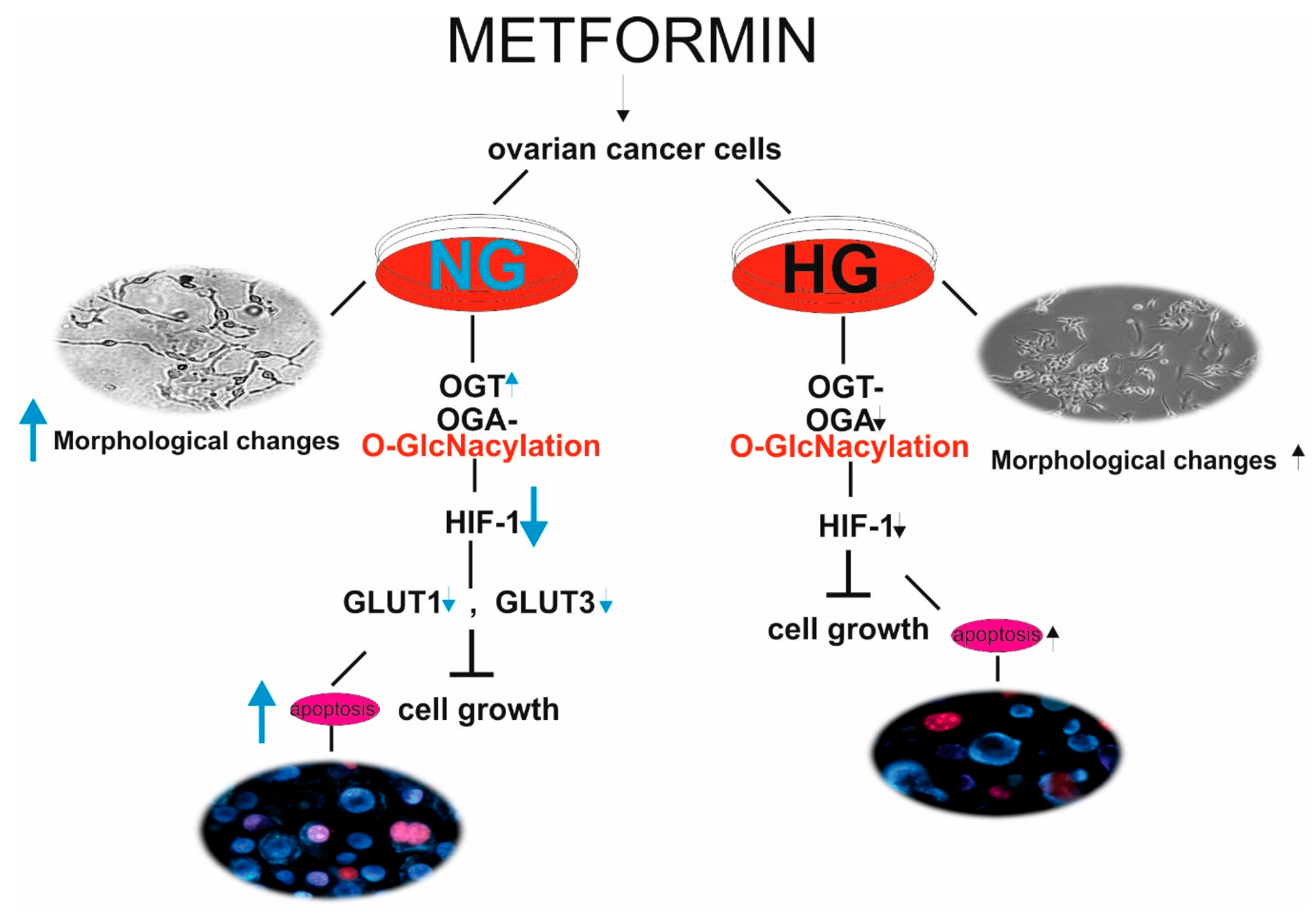 Ijms Free Full Text Hyperglycemia Associated Dysregulation Of O Glcnacylation And Hif1a Reduces Anticancer Action Of Metformin In Ovarian Cancer Cells Skov 3