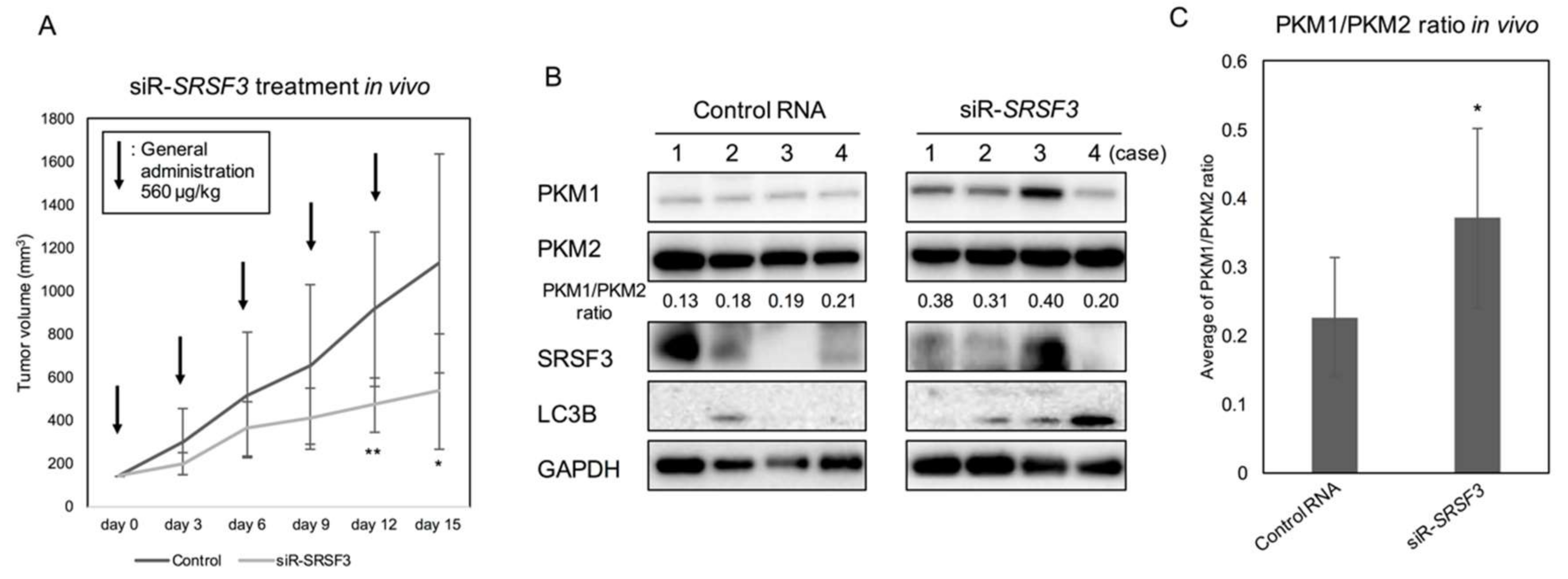 Ijms Free Full Text Srsf3 A Splicer Of The Pkm Gene Regulates Cell Growth And Maintenance Of Cancer Specific Energy Metabolism In Colon Cancer Cells Html