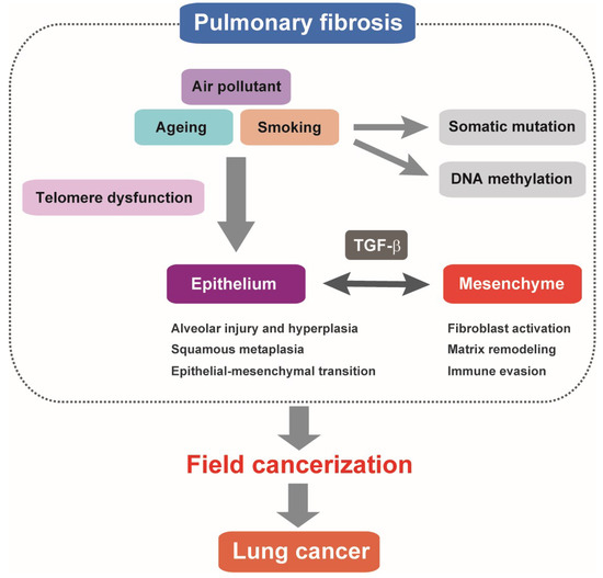 IJMS | Special Issue : Inflammation and Cancer 2018