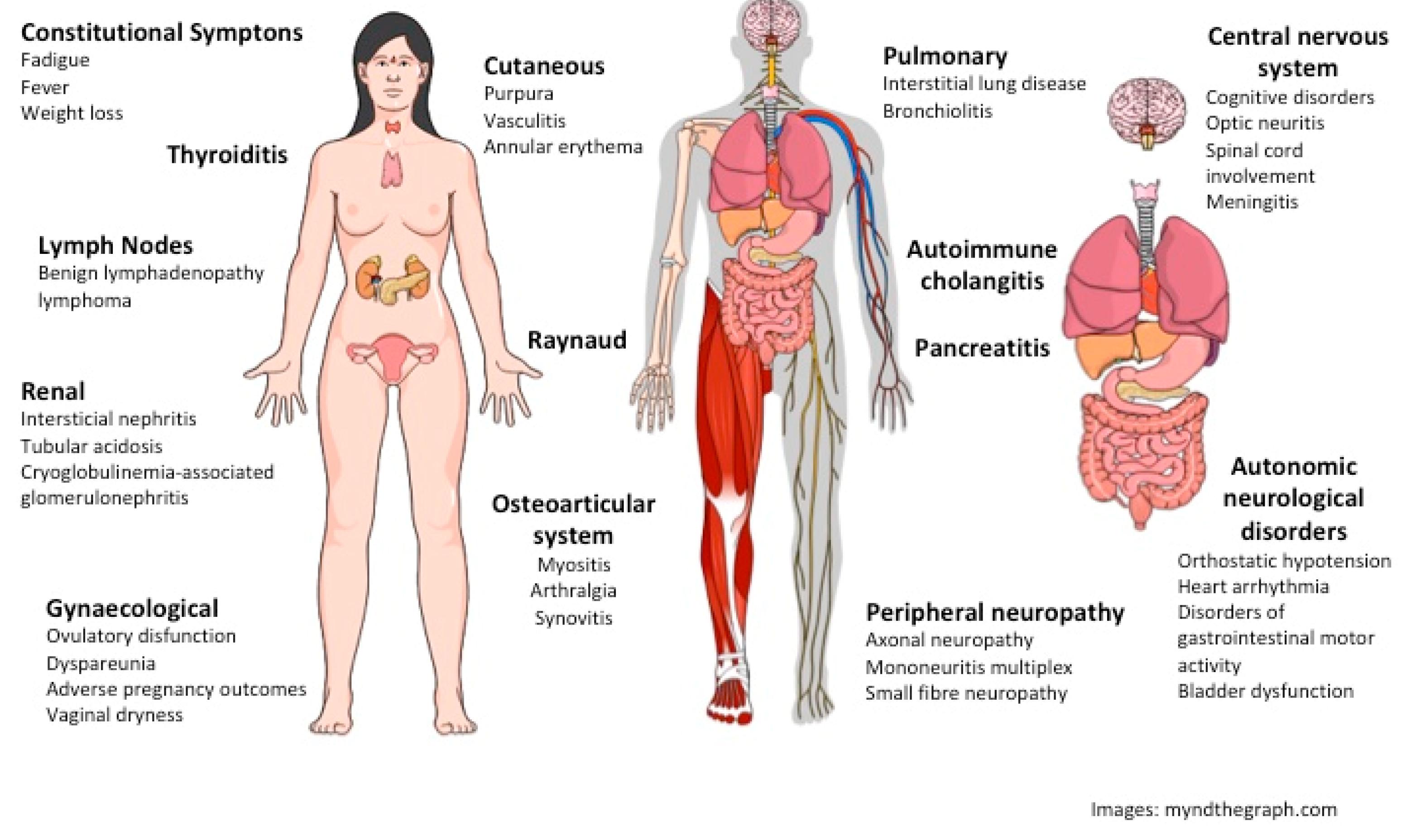 IJMS   Free Full-Text   Neurological and Inflammatory Manifestations