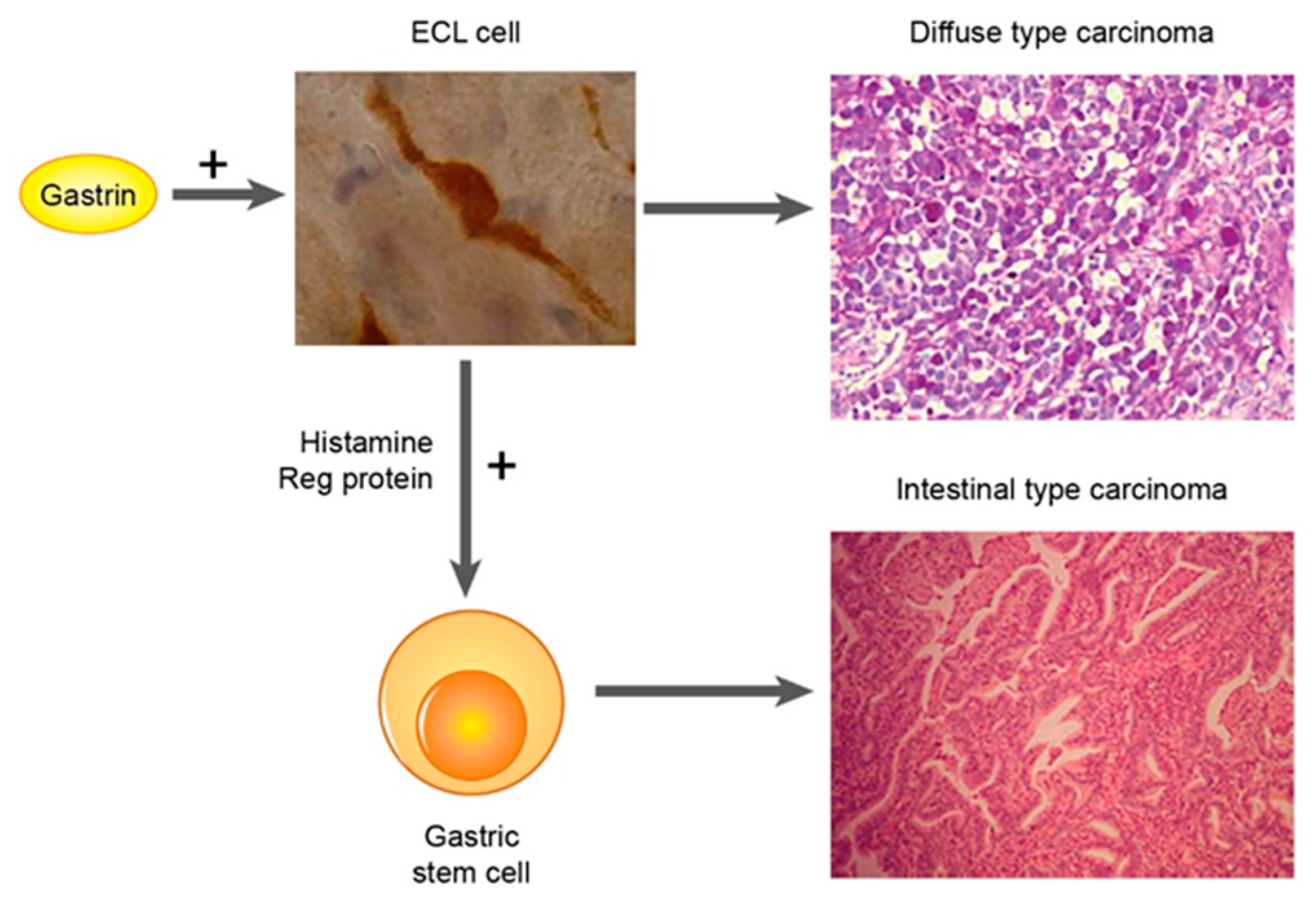 gastric cancer type