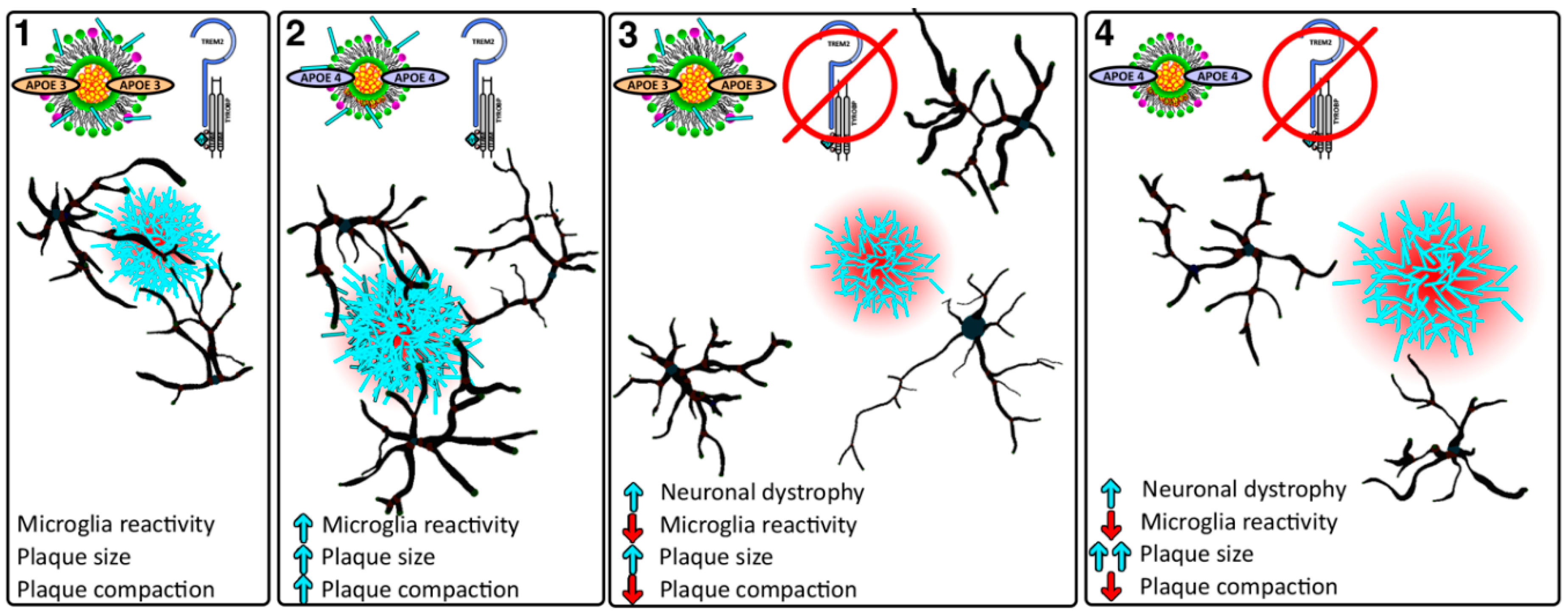 Beta Amyloid Plaques >> IJMS   Free Full-Text   The Role of APOE and TREM2 in Alzheimer′s Disease—Current Understanding ...