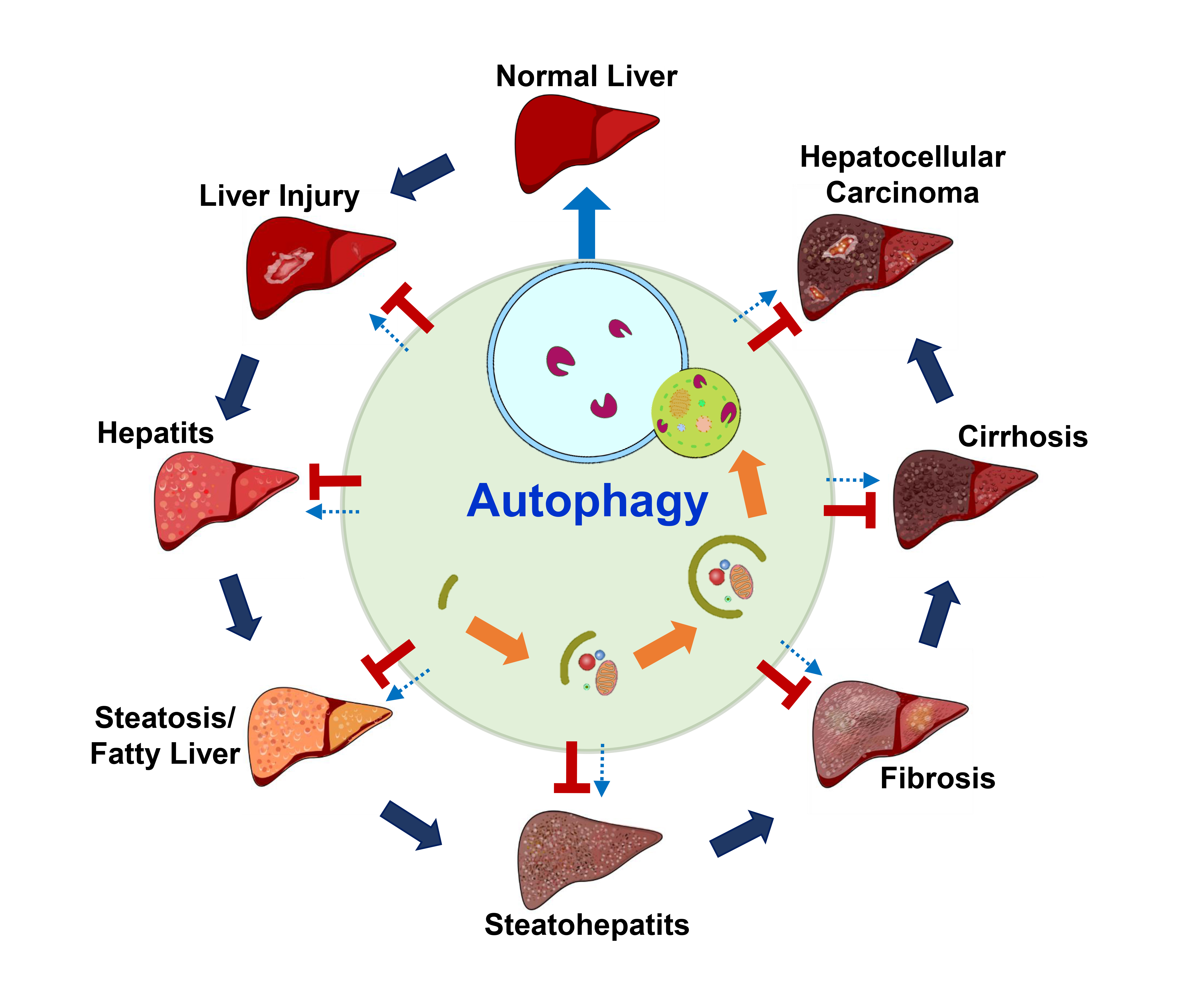 Ijms Free Full Text Diverse Functions Of Autophagy In Liver