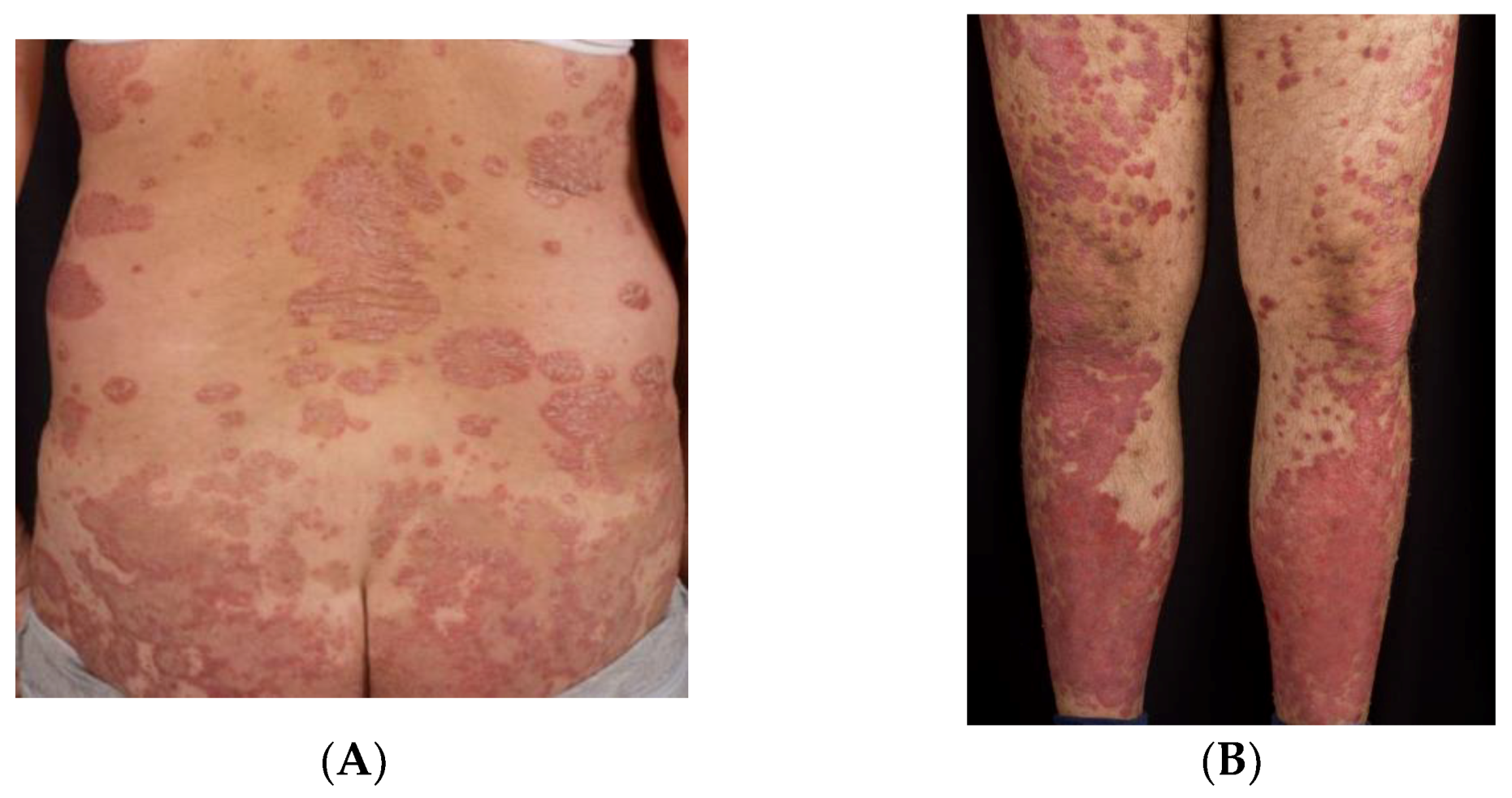 psoriasis cleared up during pregnancy