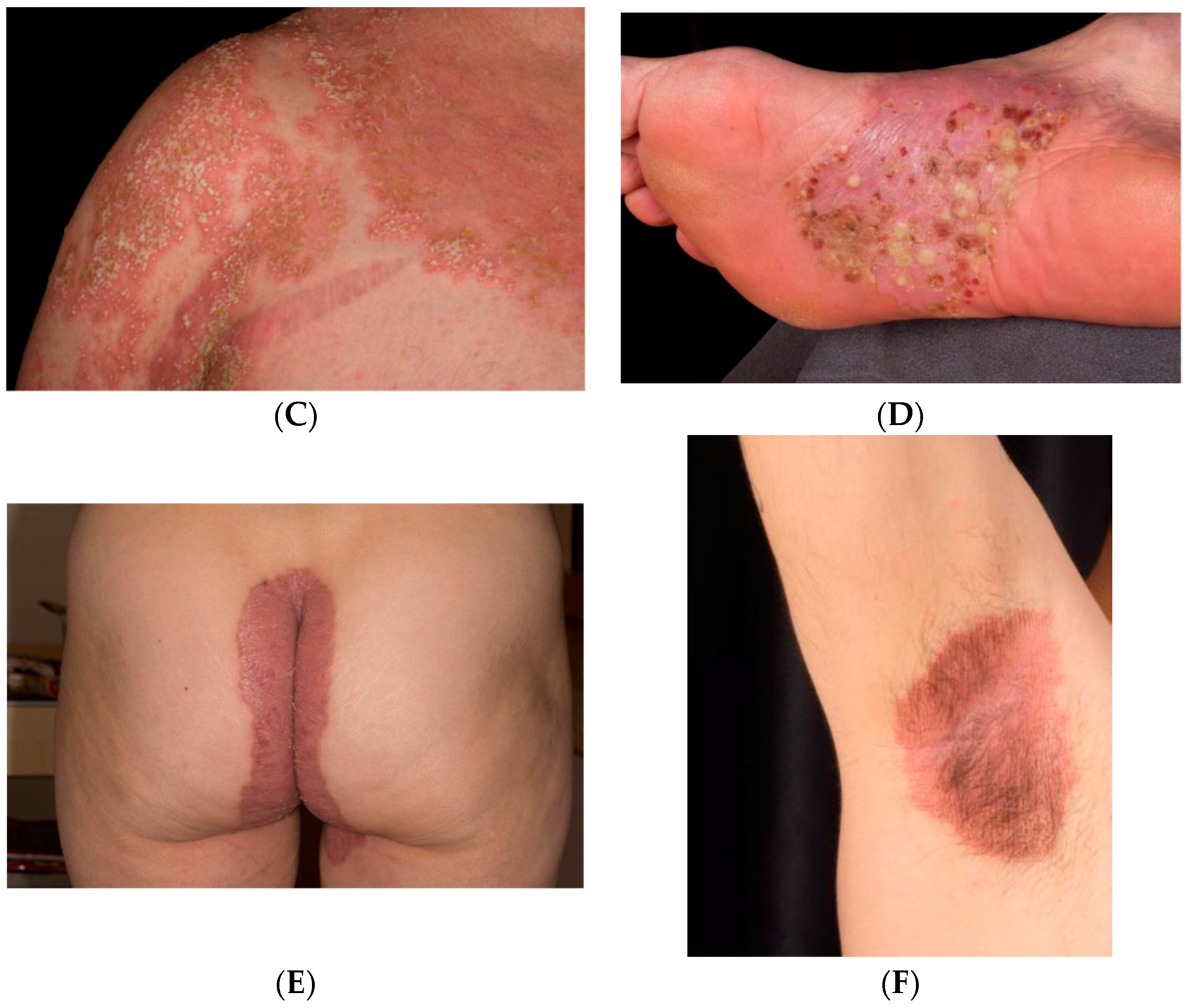 psoriasis cleared up during pregnancy)
