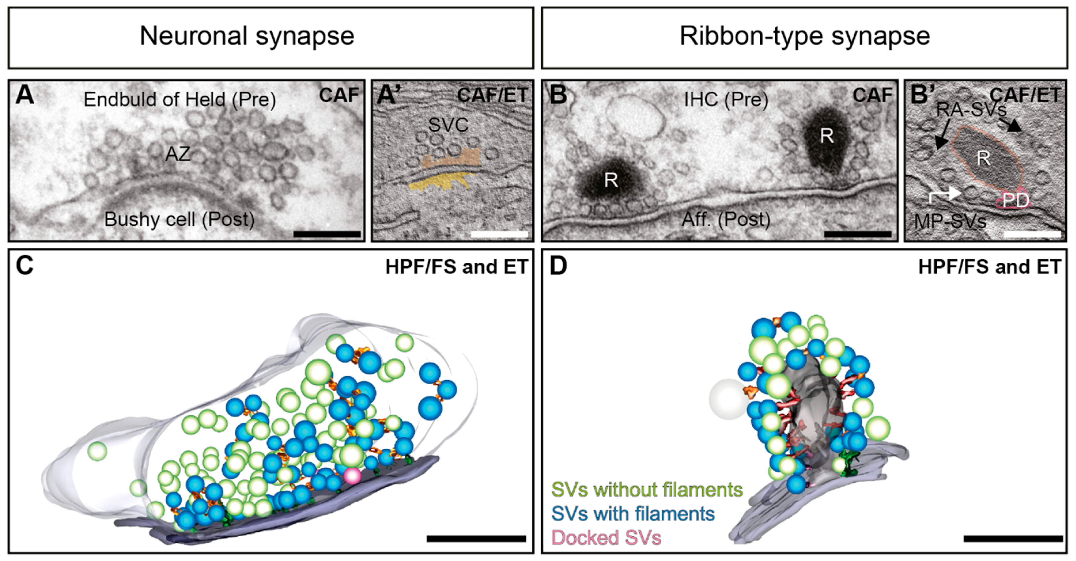 Neuronal Barcodes Shape Complex Networks In The Brain >> Ijms Free Full Text Nanomachinery Organizing Release At Neuronal