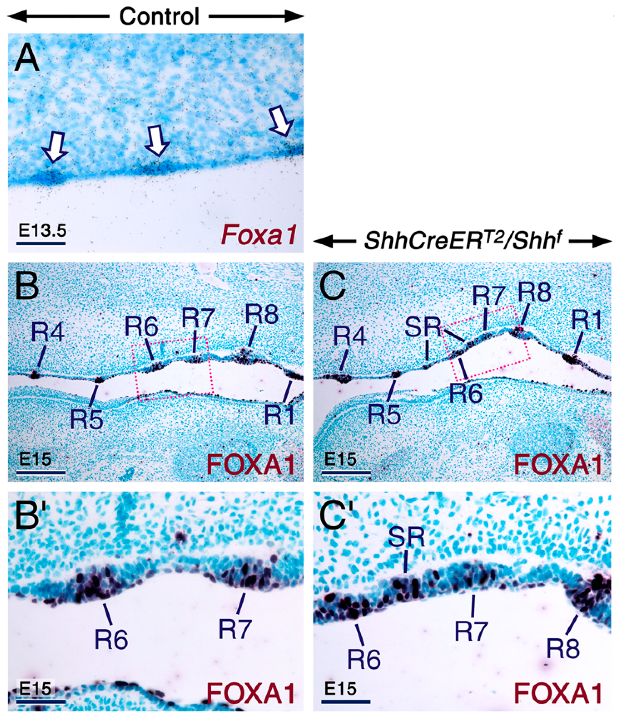 IJMS | Free Full-Text | Sonic Hedgehog Signaling Is Required