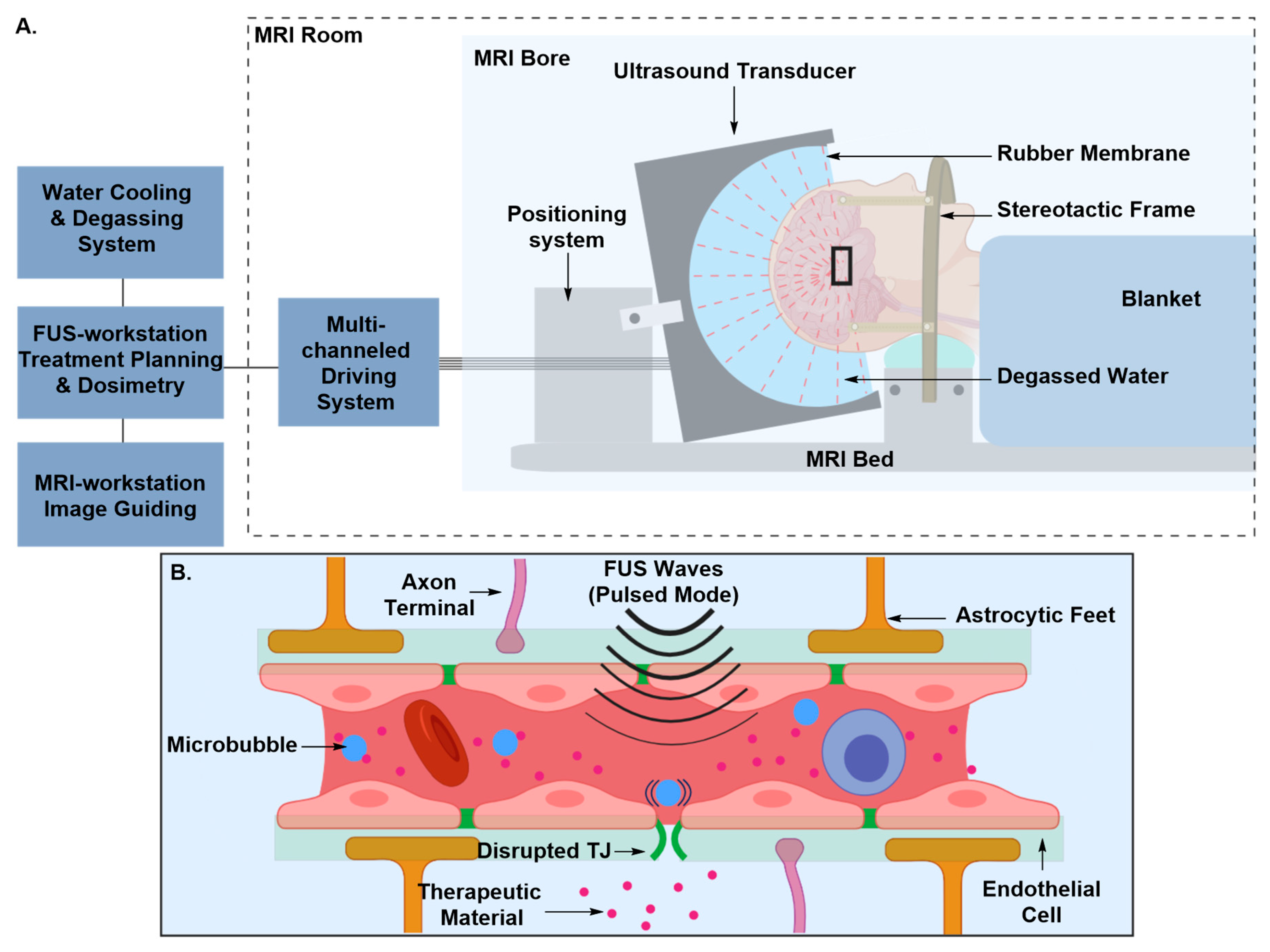 IJMS | Free Full-Text | Approaches to CNS Drug Delivery with