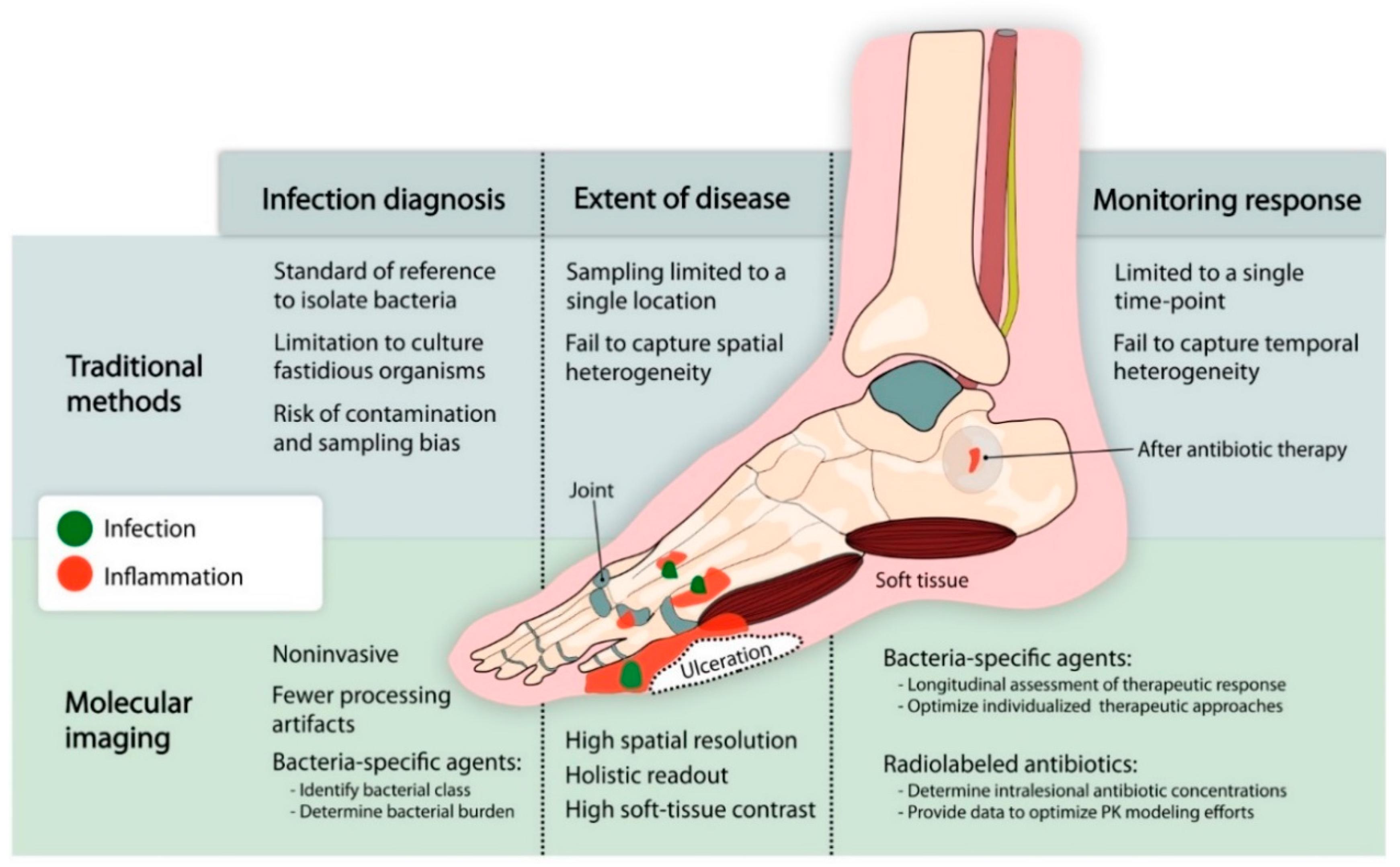 Ijms Free Full Text Molecular Imaging Of Diabetic Foot