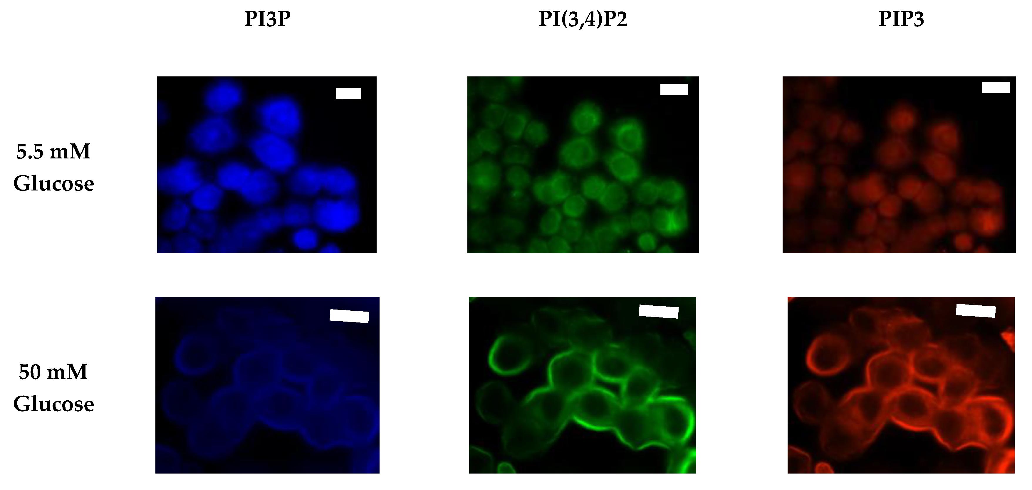 Ijms Free Full Text Using Phosphatidylinositol Phosphorylation