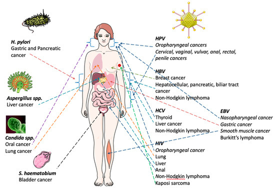 Hiv and gastric cancer, Hpv throat cancer blog