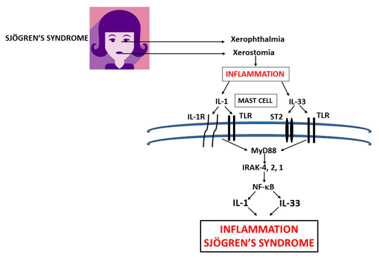 Xerophthalmia and xerostomia glands in primary Sjogren's syndrome (pSS) inflammation release pro-inflammatory cytokines IL-1 and IL-33 which activate mast cells (MCs) to produce IL-1 family members exacerbating inflammation in pSS