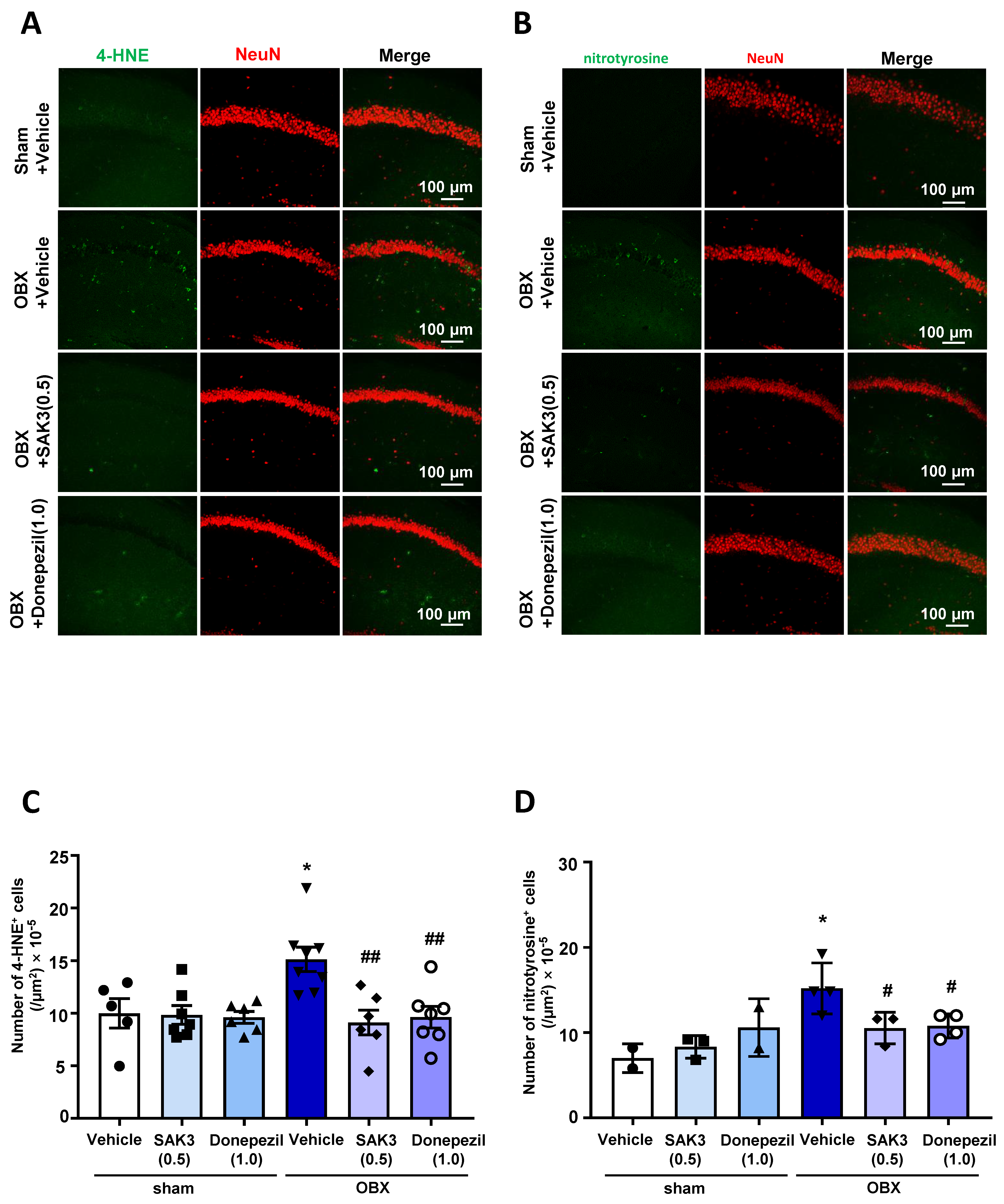Ijms Free Full Text Single Administration Of The T Type Calcium Channel Enhancer Sak3 Reduces Oxidative Stress And Improves Cognition In Olfactory Bulbectomized Mice Html