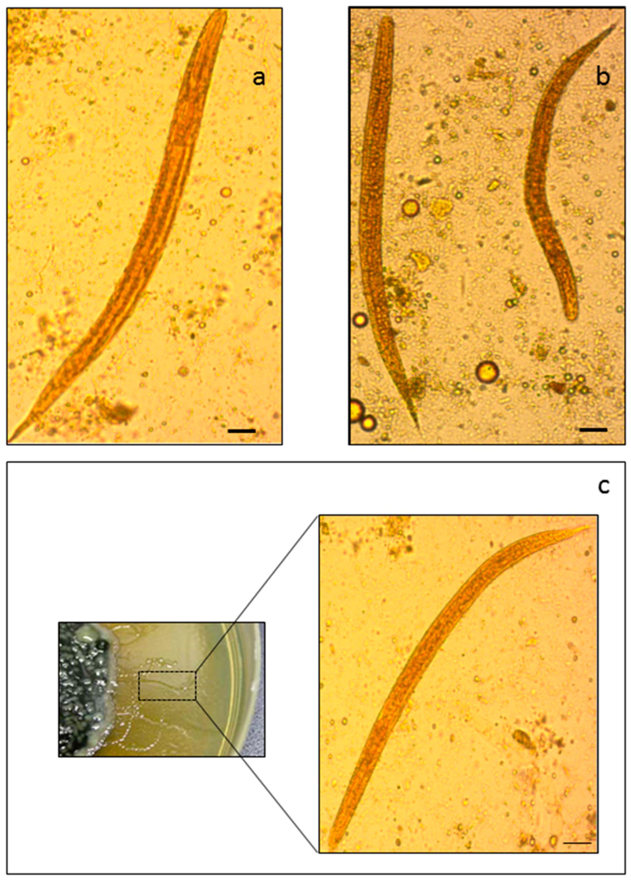 Strongyloidosis Fórum parazita manipulátorok