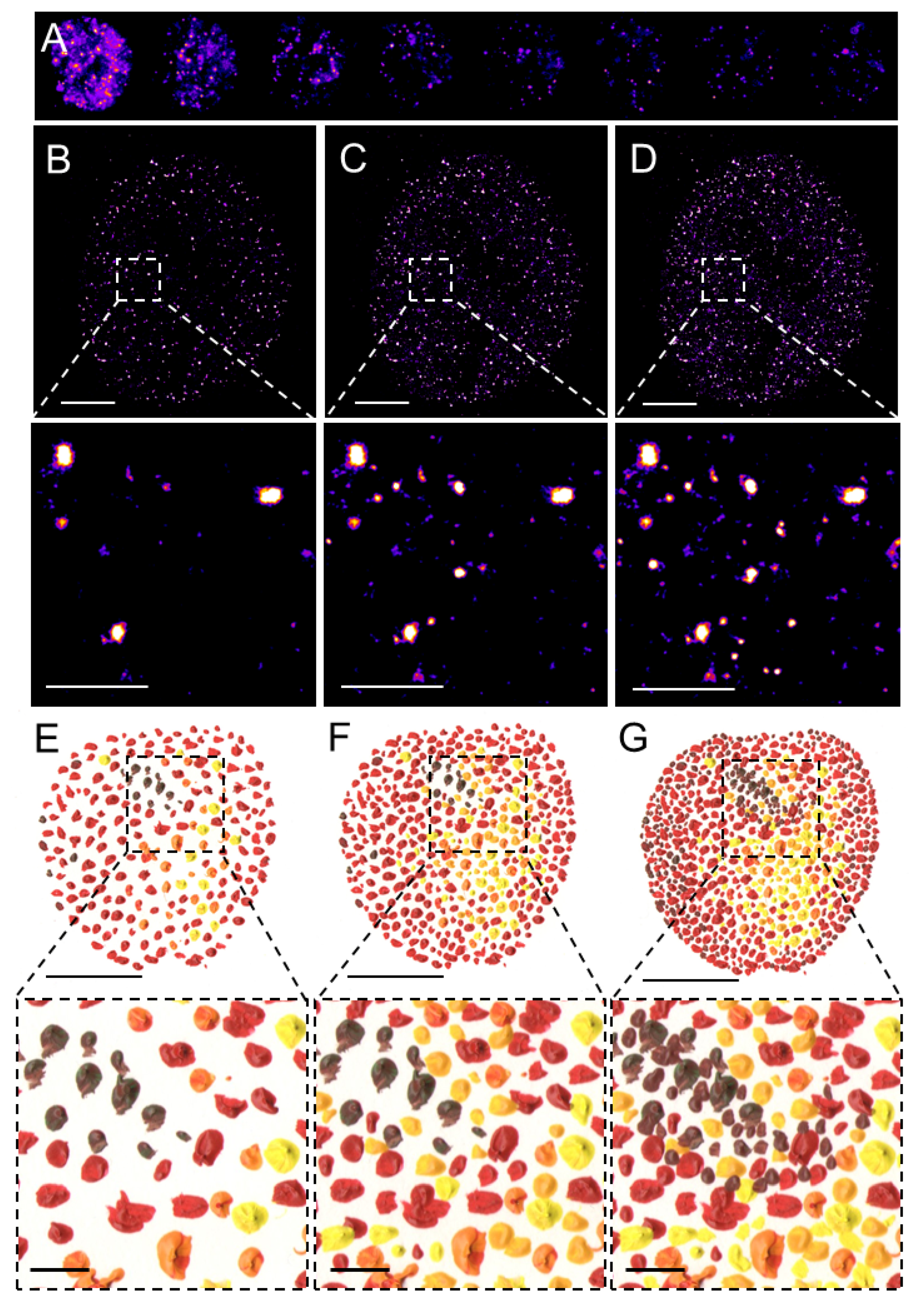 Pointillistic nature of single-molecule localization microscopy. (A) Individual frames from the time-lapse acquisition of raw blinking of Alexa Fluor (AF)647-labeled secondary antibody against primary anti-RNAPII antibody (RNAPII-AF647). The signal of individual AF647 molecules accumulates in time (B,C) to create the final dSTORM image of RNAPII (C). The imaging process in (B–D) resembles an artistic painting style called pointillism in which the accu-mulation of color spots on a canvas (E,F) creates the final painting (G). Artistic paintings in (E–G) were kindly provided by Katarína Mrvová. White bar = 5 µm; inset 1 µm. Black bar = 5 cm; inset 1 cm.