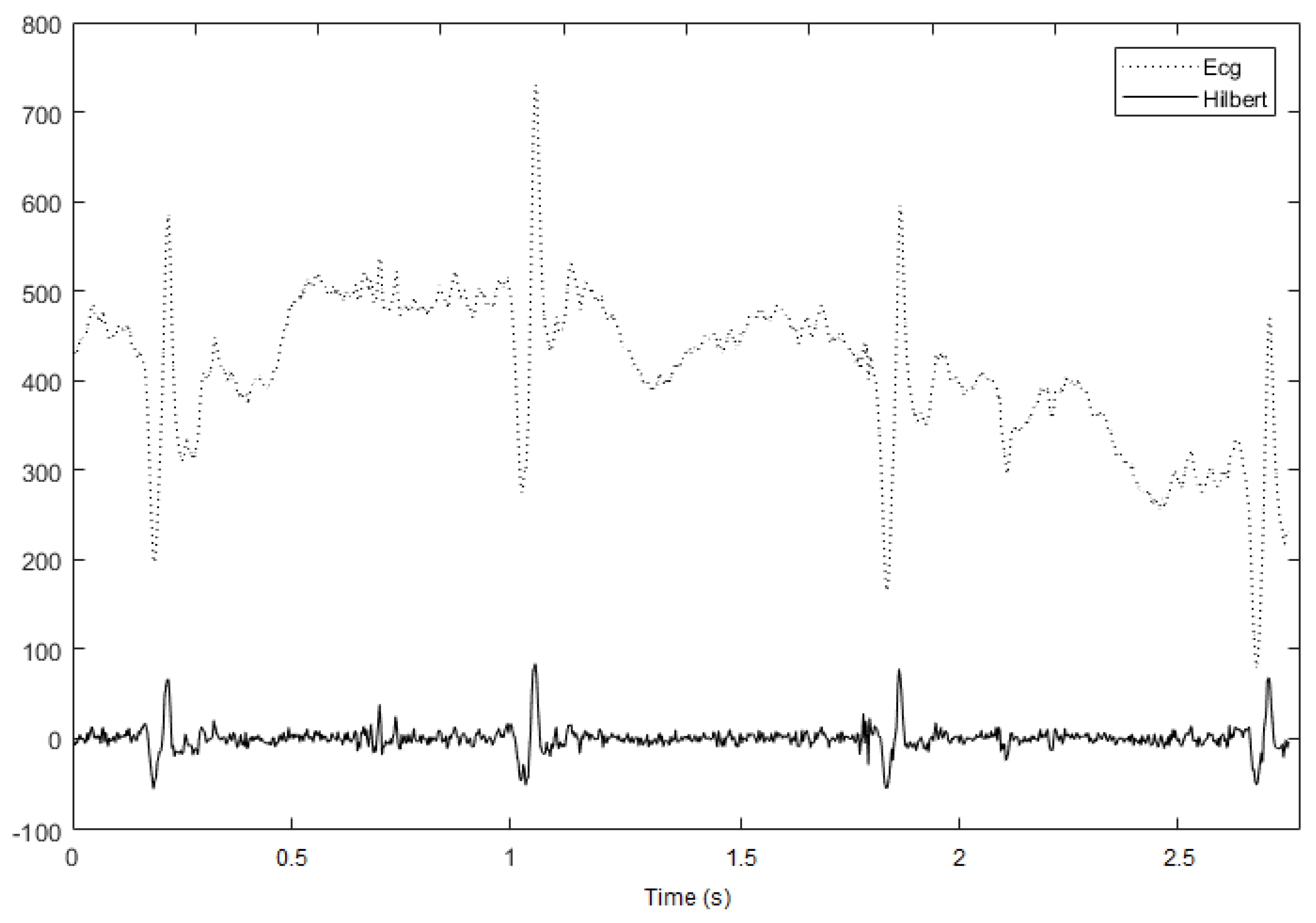 Information | Free Full-Text | Noisy ECG Signal Analysis for