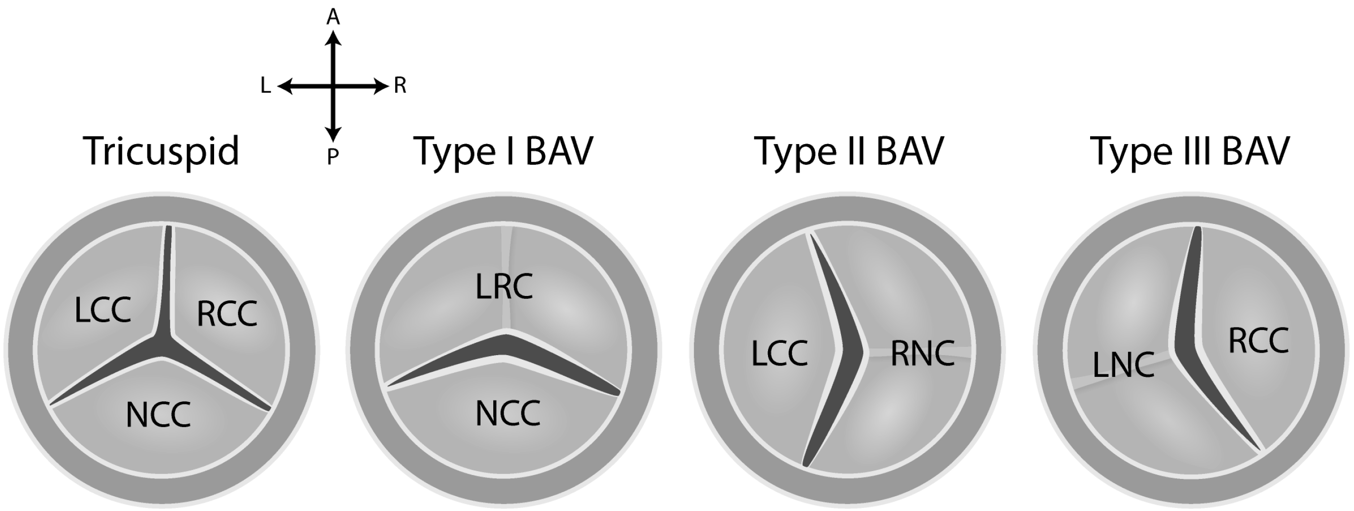 Jcdd Free Full Text Embryonic Development Of The Bicuspid Aortic