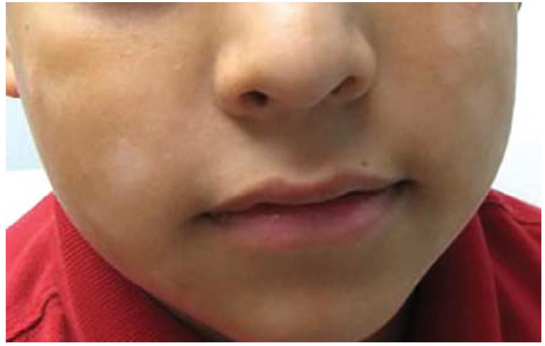 JCM | Free Full-Text | Diagnosis of Atopic Dermatitis