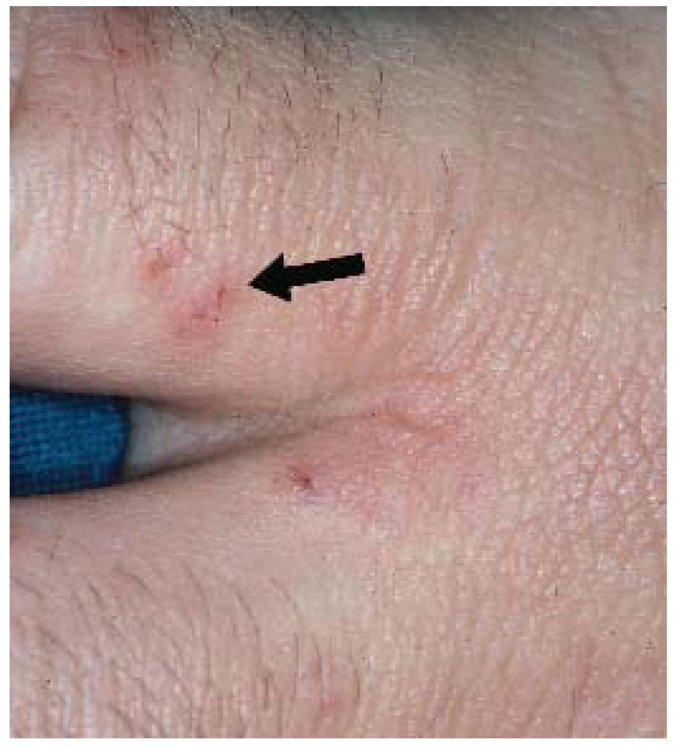 Saint Louis School >> JCM | Free Full-Text | Diagnosis of Atopic Dermatitis ...