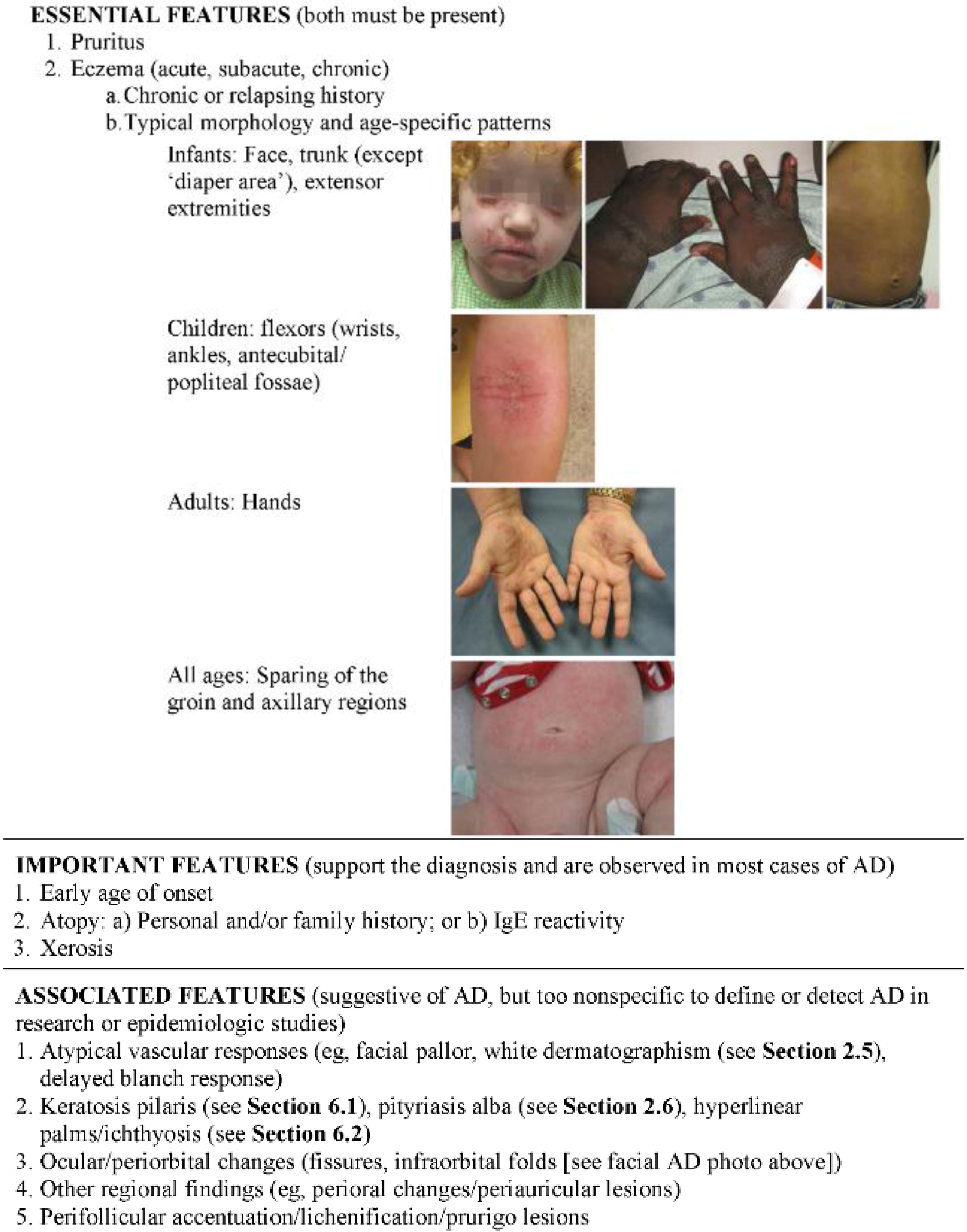 Nummular Eczema Baby Pictures Jcm I