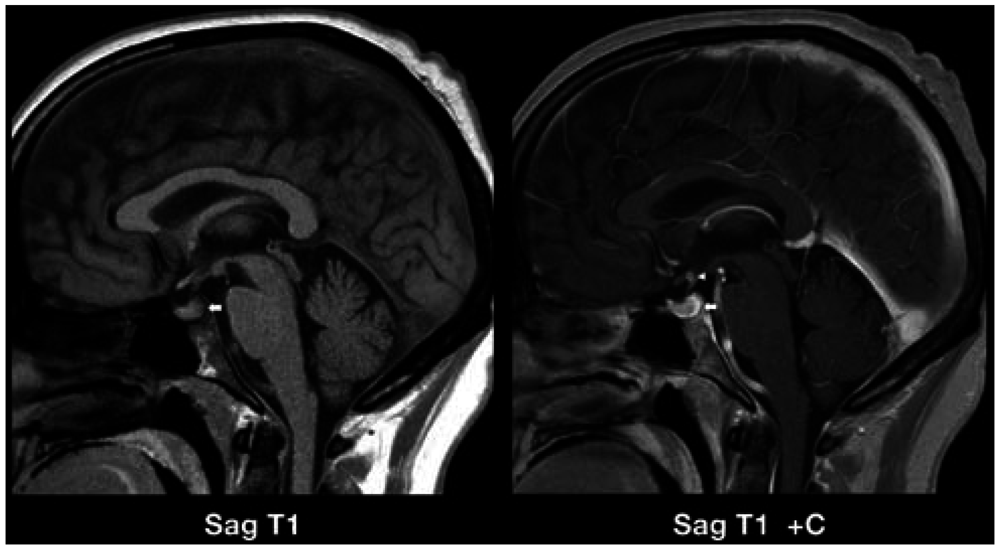 JCM | Free Full-Text | Intracranial CNS Manifestations of