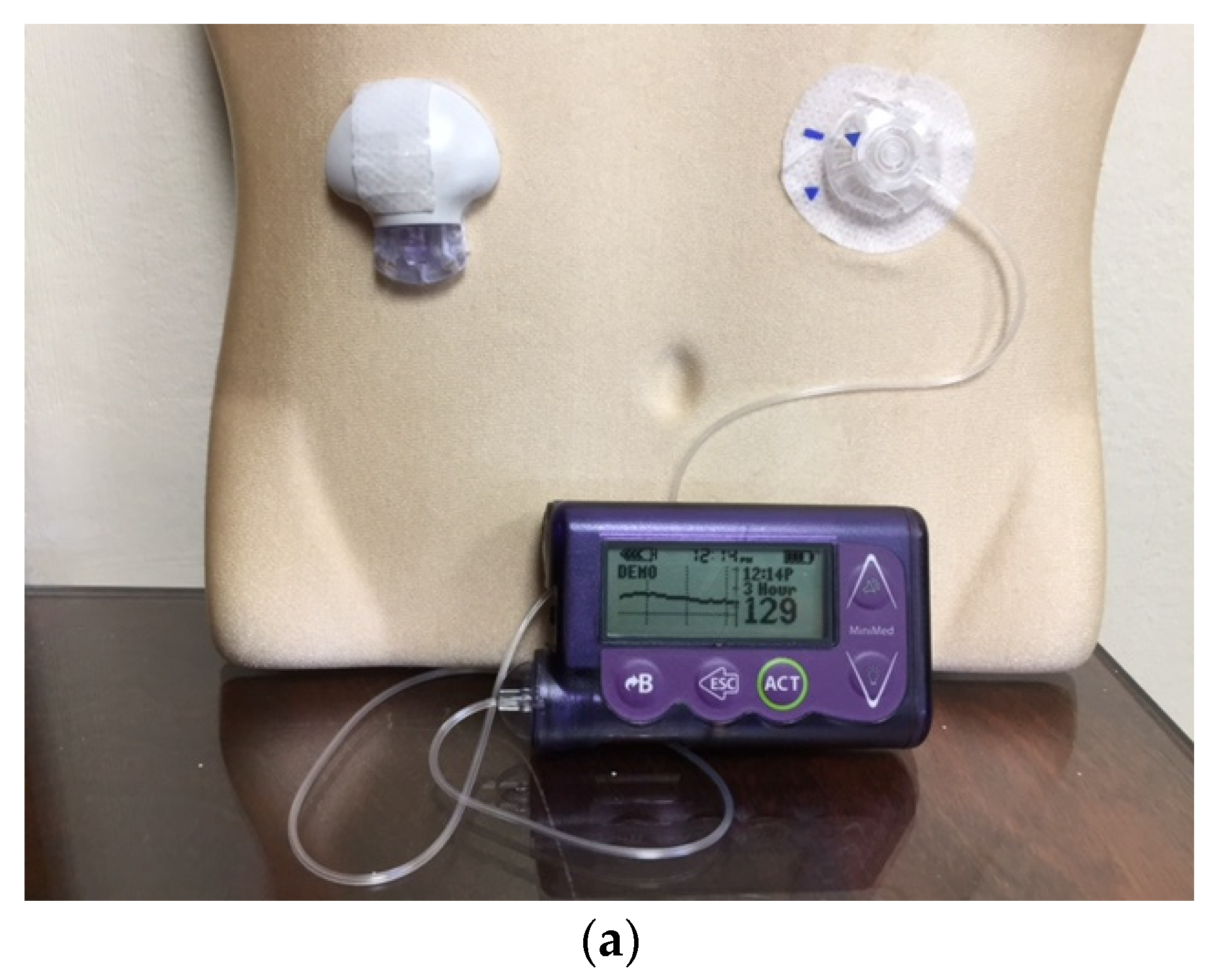 JCM | Free Full-Text | An Overview of Insulin Pumps and