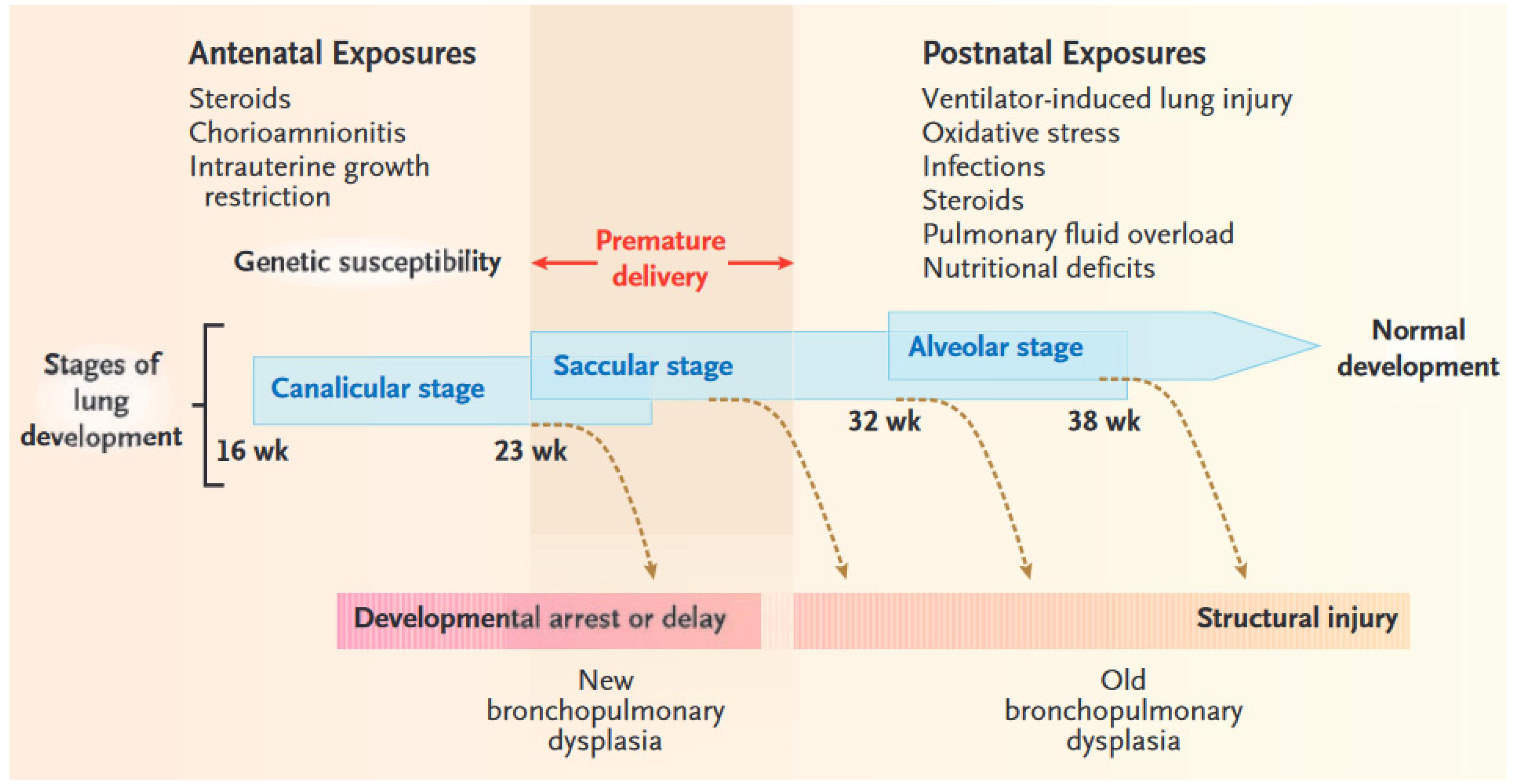 Featured Cases: Management Of Bronchopulmonary Dysplasia