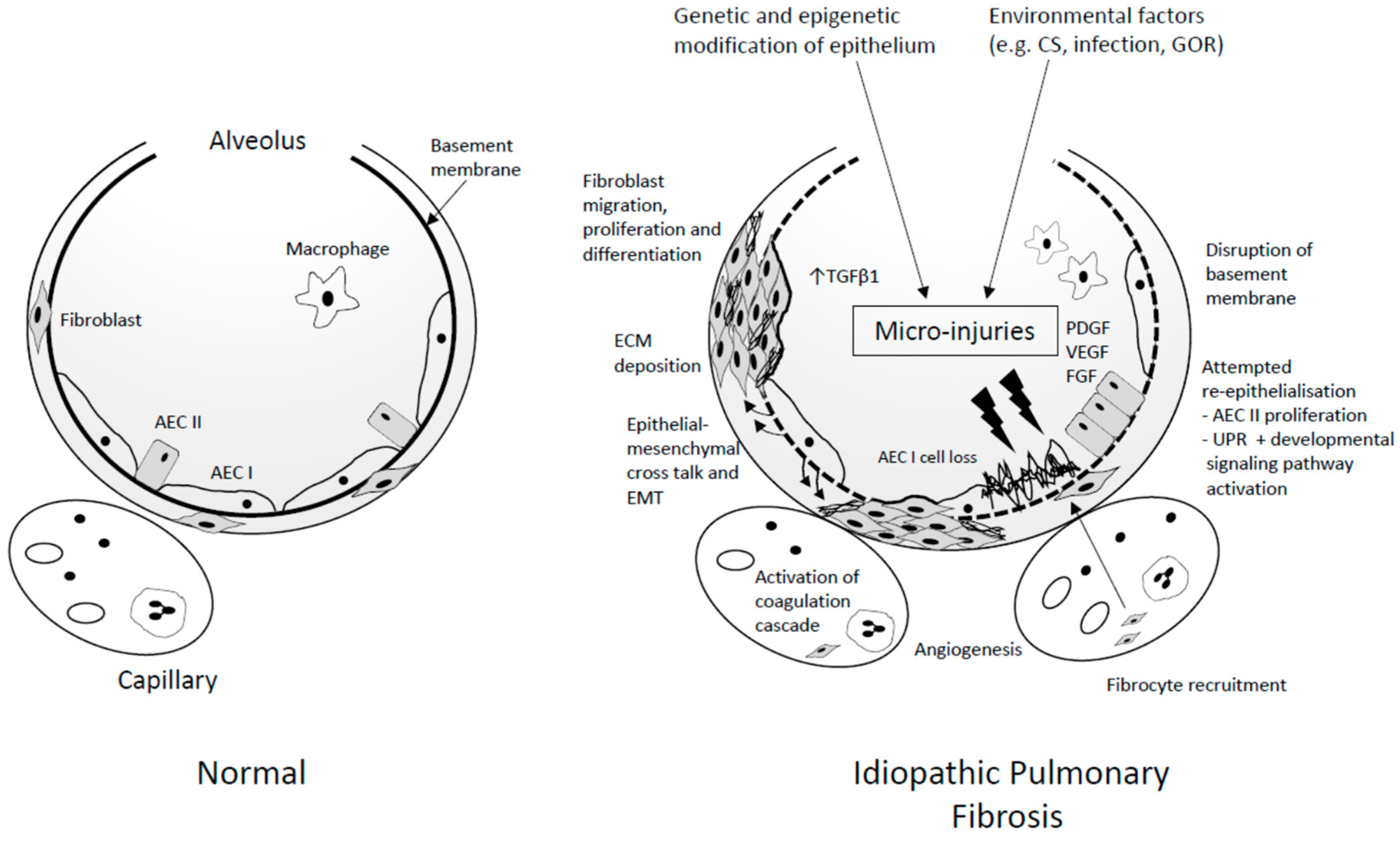 jcm free full text idiopathic pulmonary fibrosis (ipf) an overviewDiagram Of The Lungs With Ipf #10