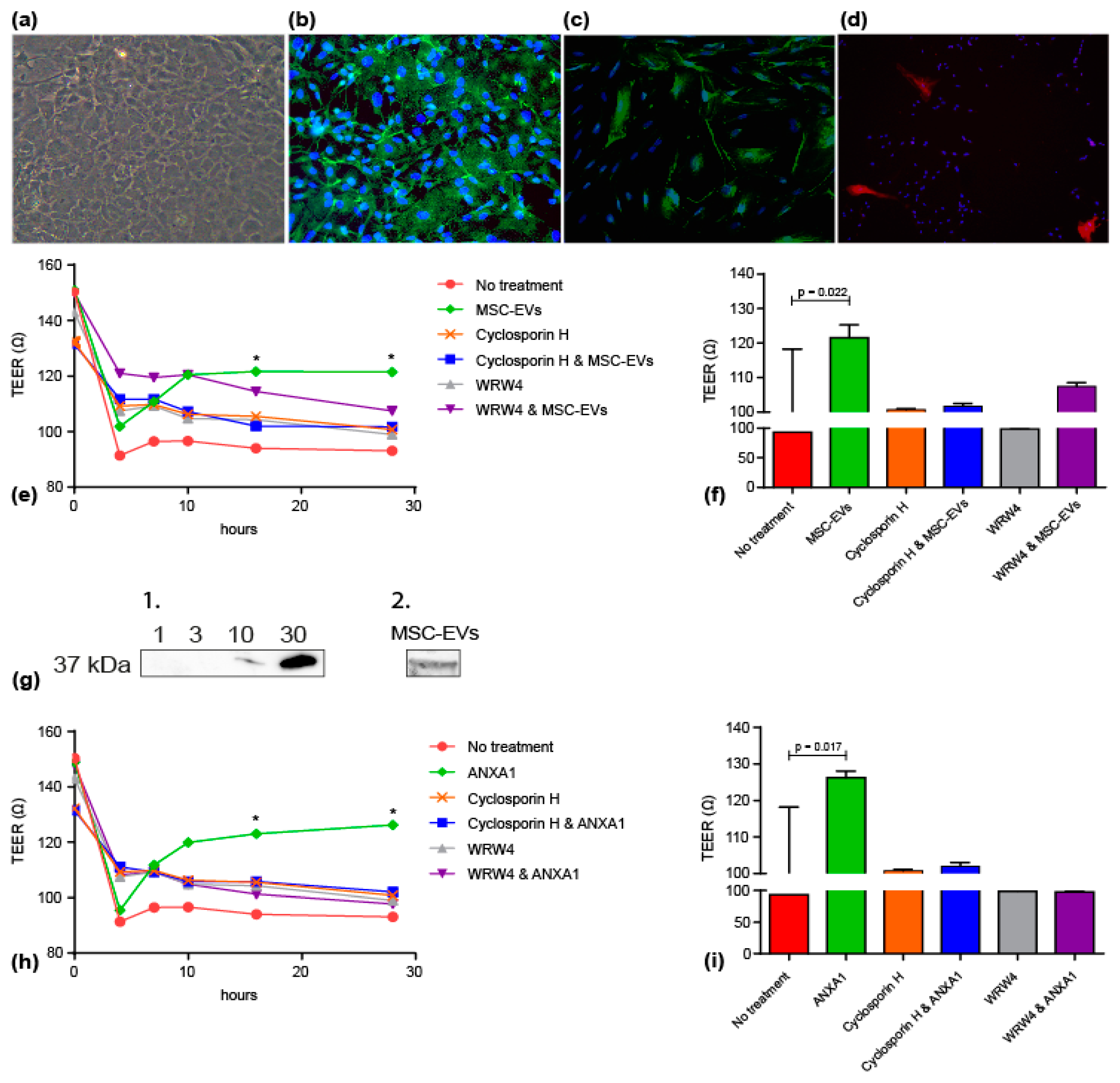Jcm Free Full Text Annexin A1 As Neuroprotective