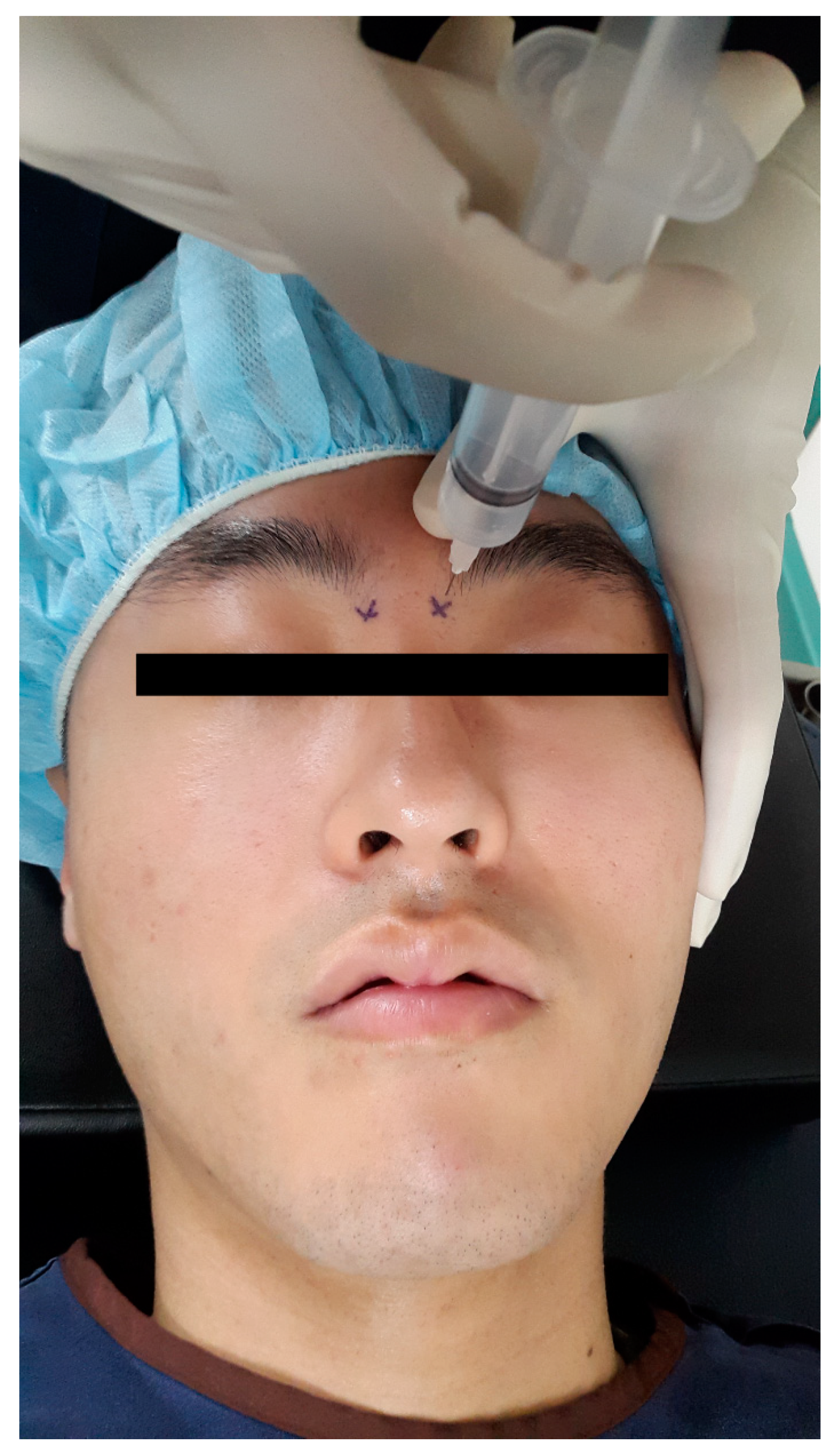 JCM | Free Full-Text | Effects of Bilateral Infraorbital and