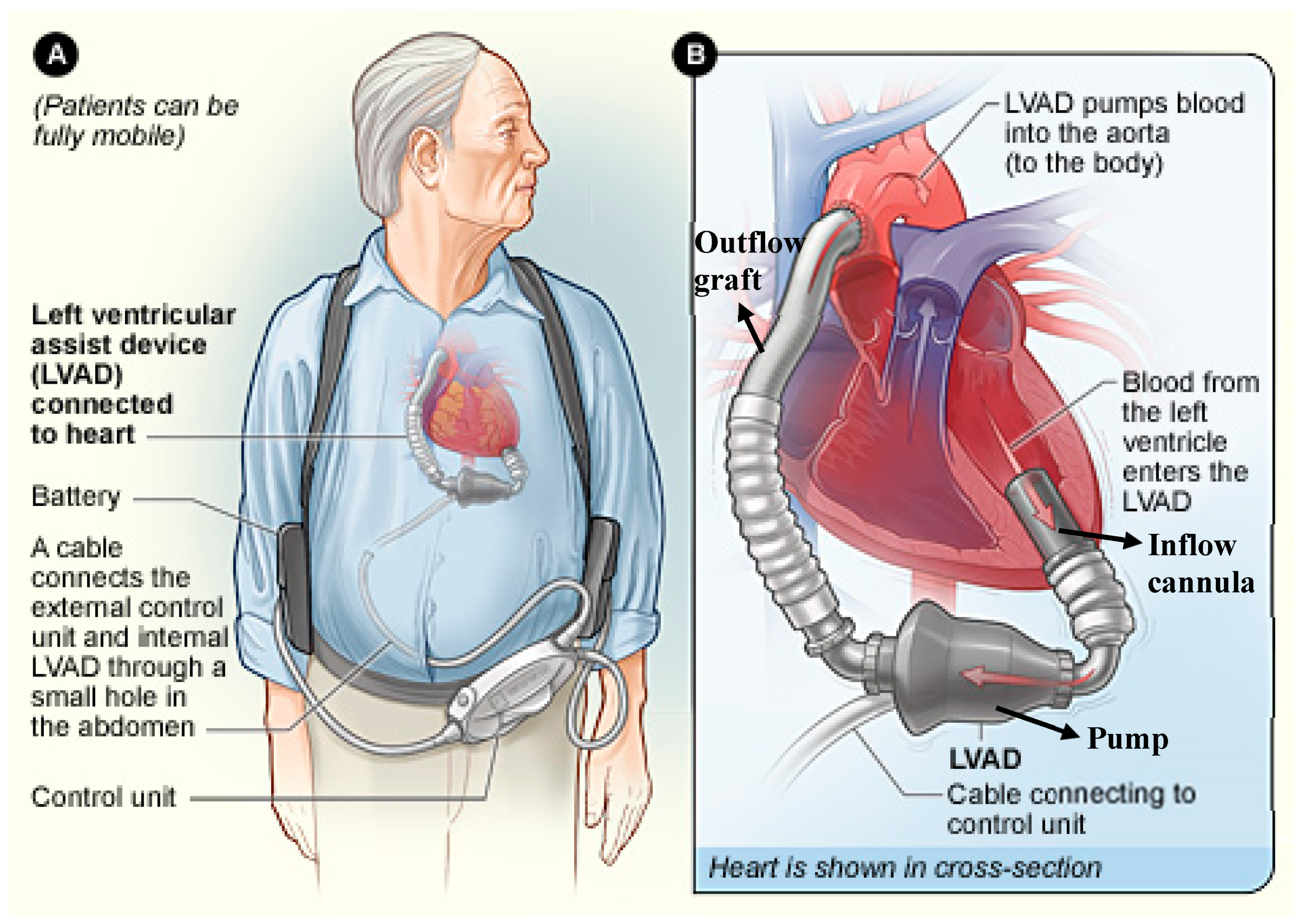 JCM   Free Full Text   Left Ventricular Assist Devices 12 Shared ...
